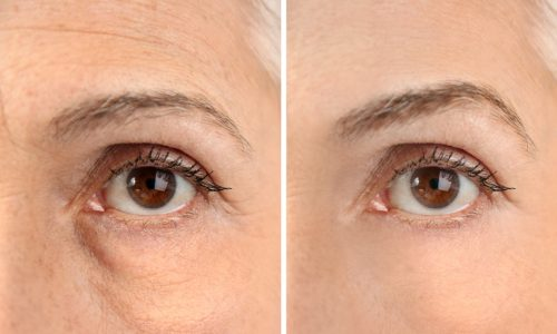 Eye Filler from Beauty Boost Med Spa before and after