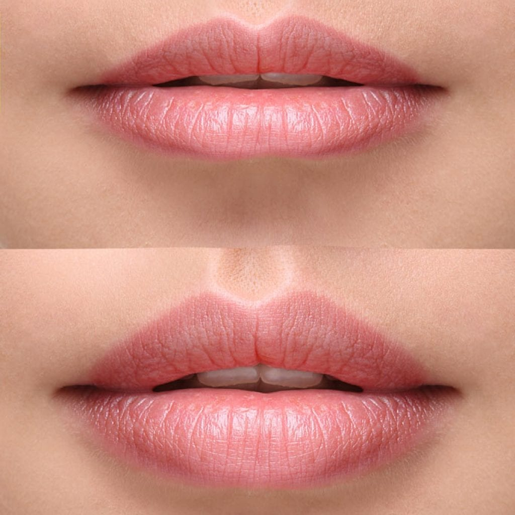 lips befor and after