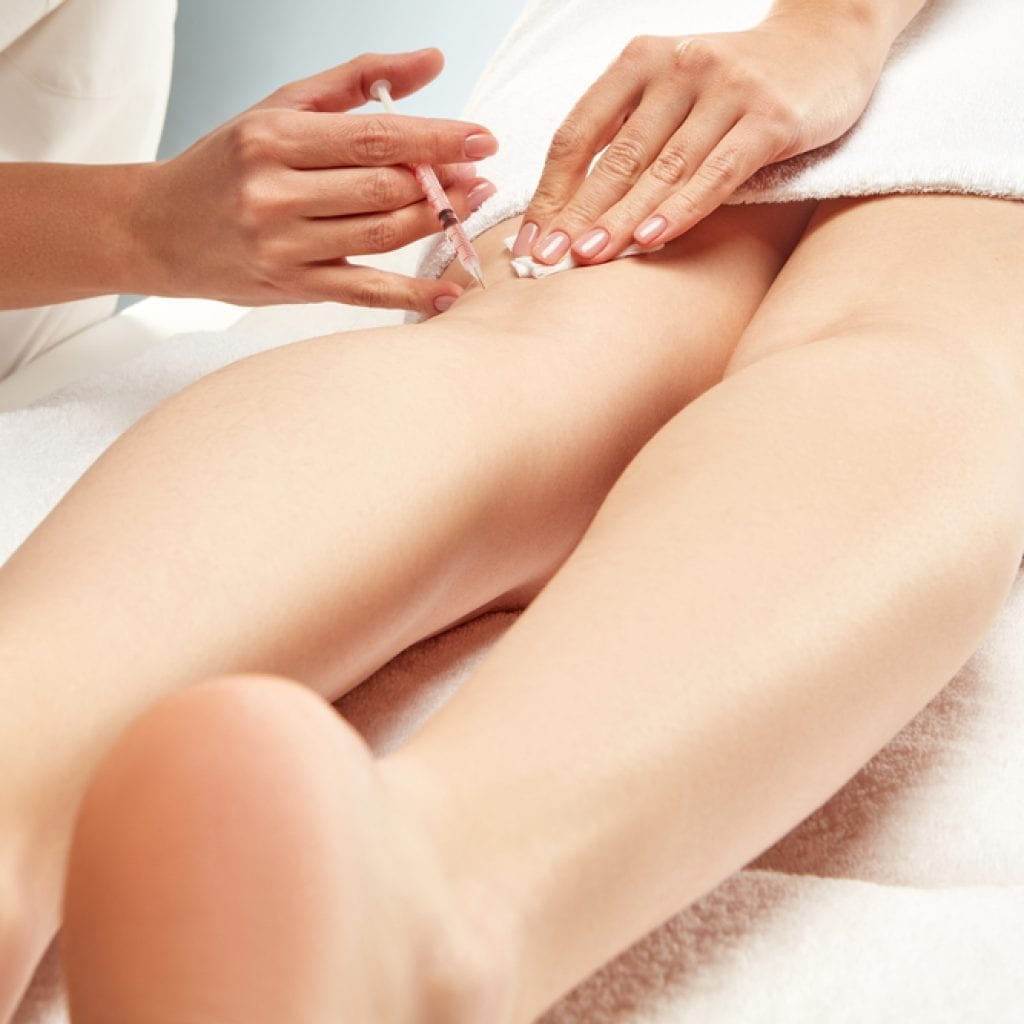 Sclerotherapy at Beauty Boost Med Spa In Orange County