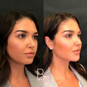 lady before and after chin filler