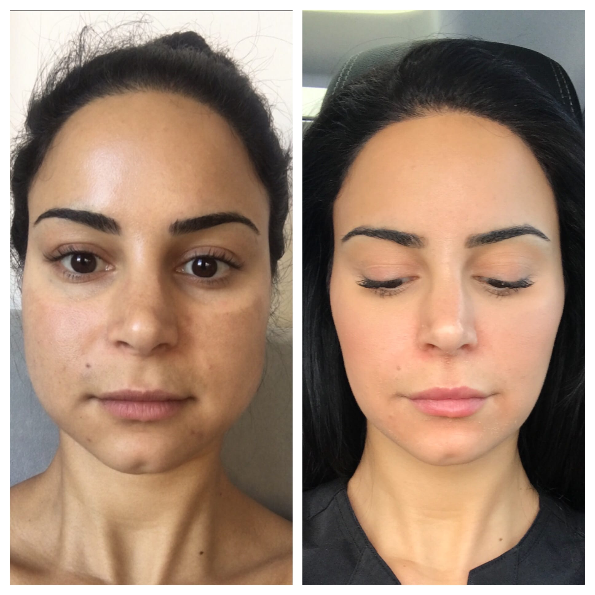 28 y/o F and Founder of Beauty Boost, 3 months after receiving 40 units of botox to her masseters for jawline slimming.