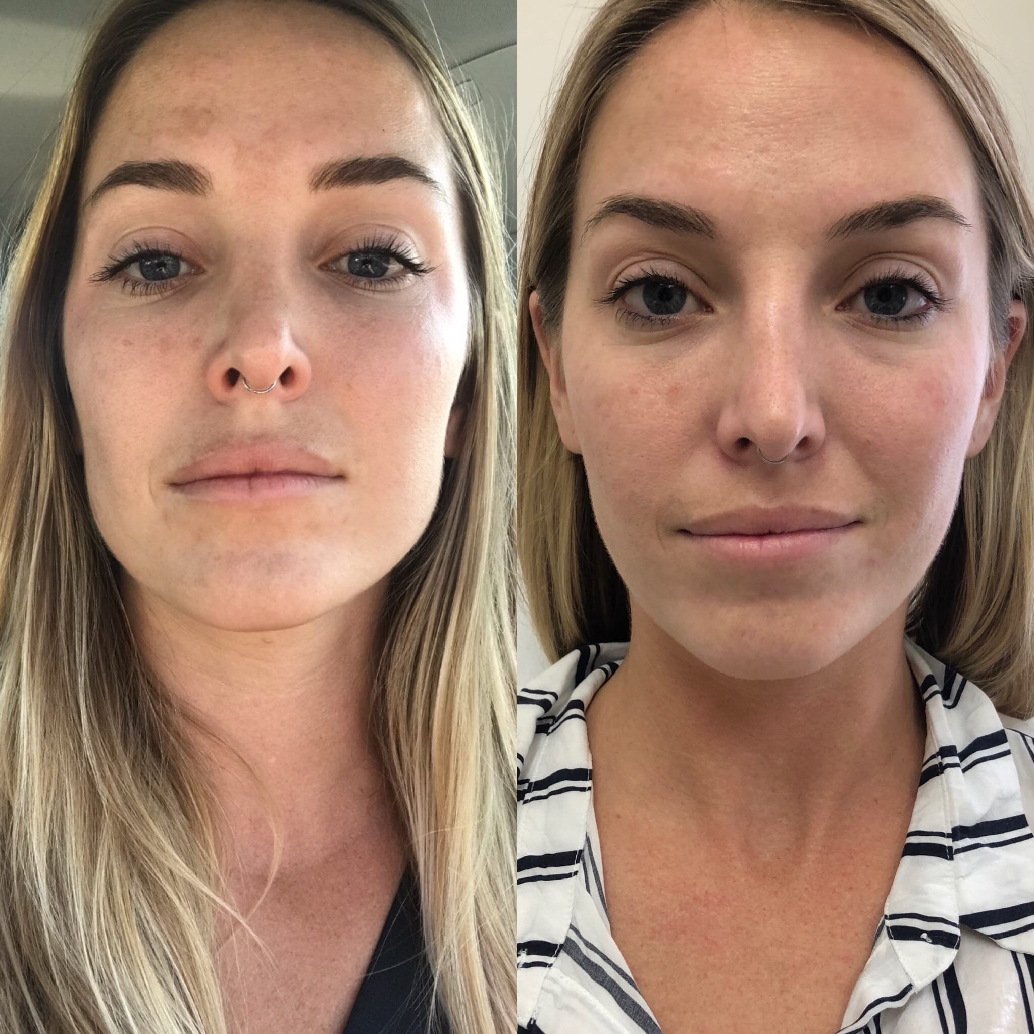 29 y/o Caucasian F 3 months after receiving 40 units of botox to her masseters for jawline slimming and facial reshaping.
