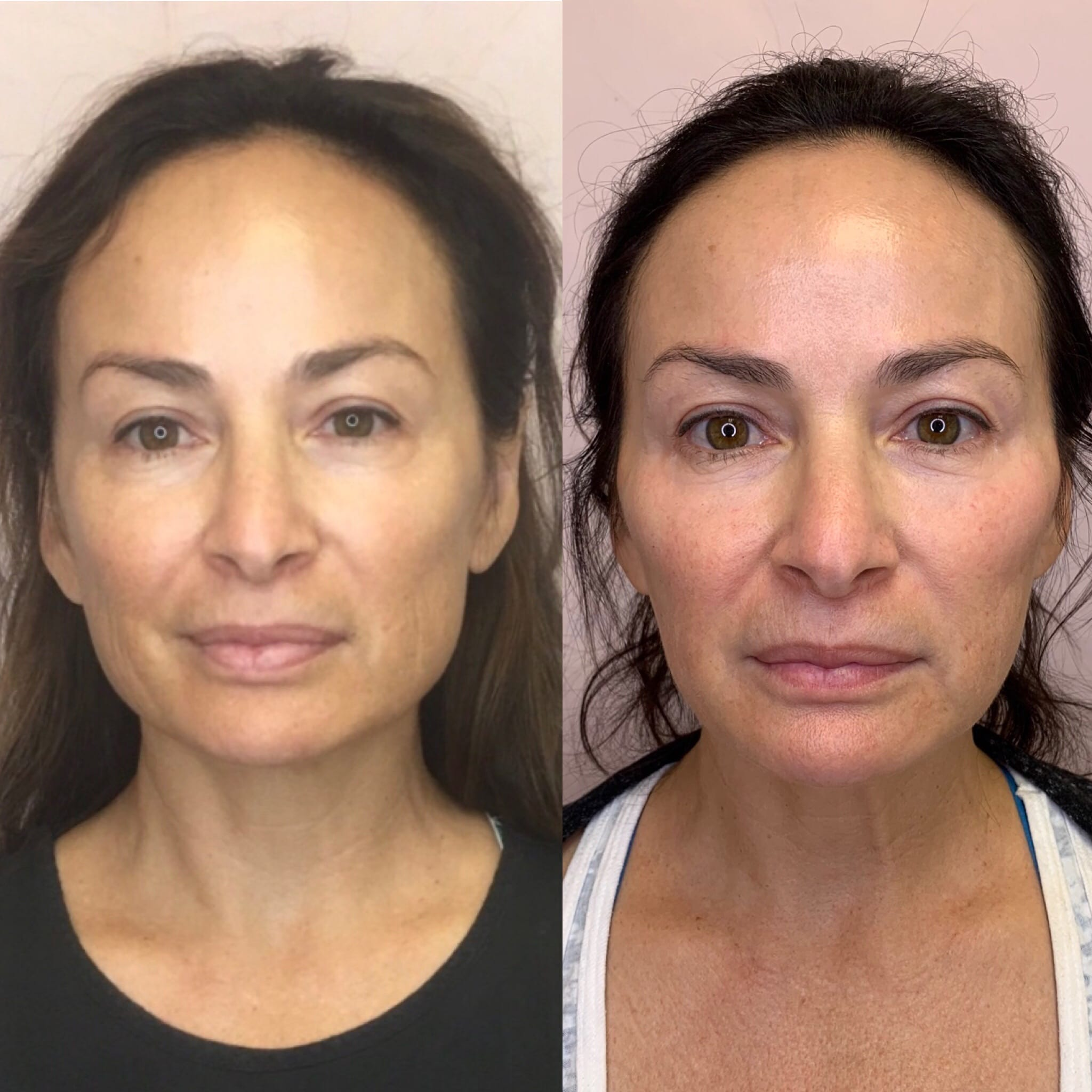 53 y/o Caucasian F 3 months after receiving 40 units of botox to her masseters for jawline slimming and facial reshaping.