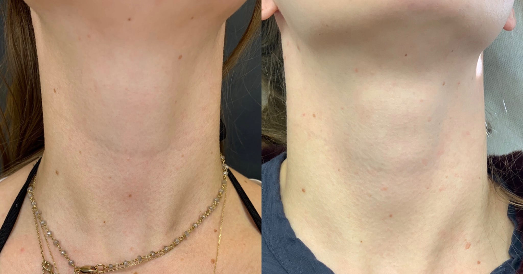 29 y/o Caucasian F 2 weeks after injecting vollure to her neck line.