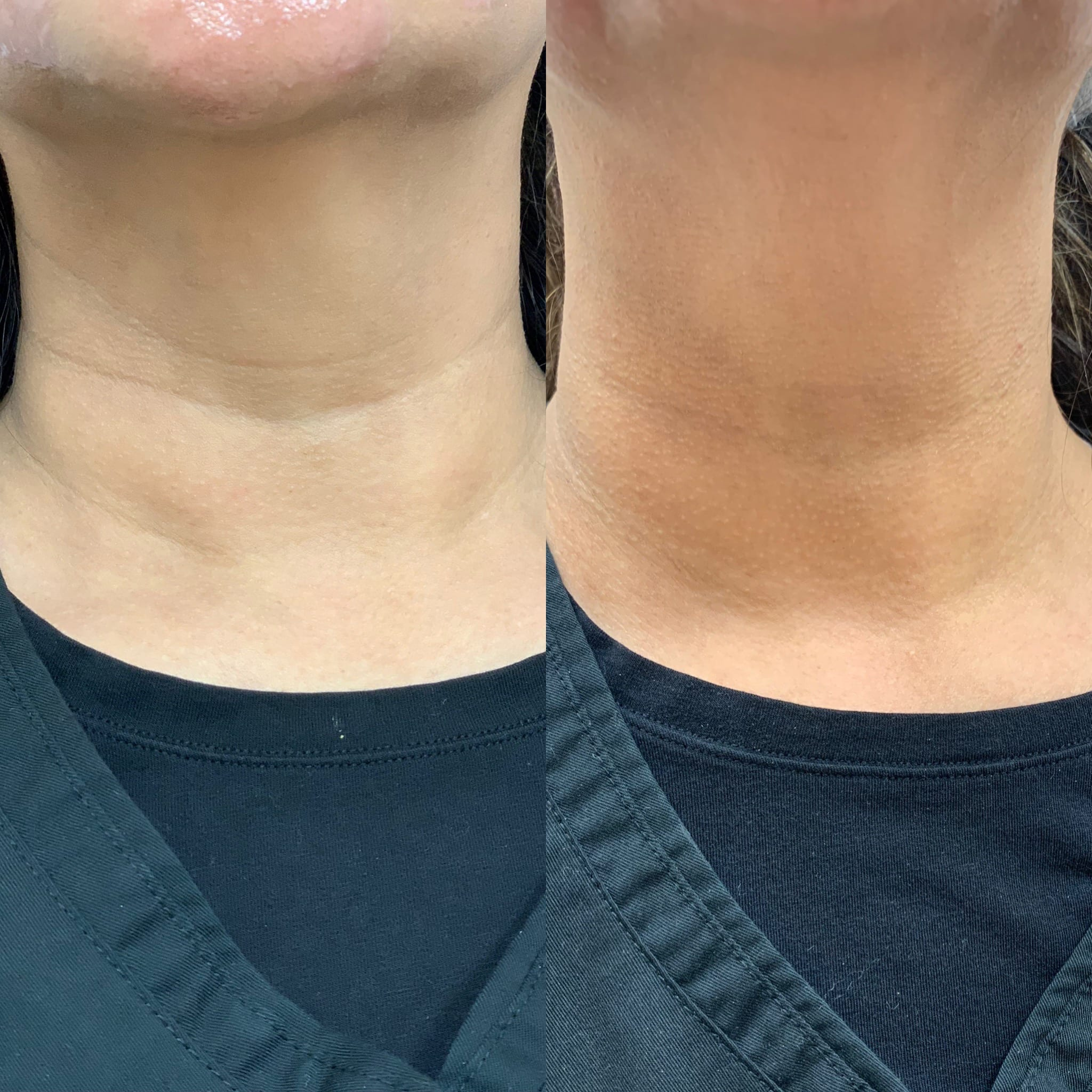 48 y/o Filipino F 2 weeks after injecting vollure to her neck lines.