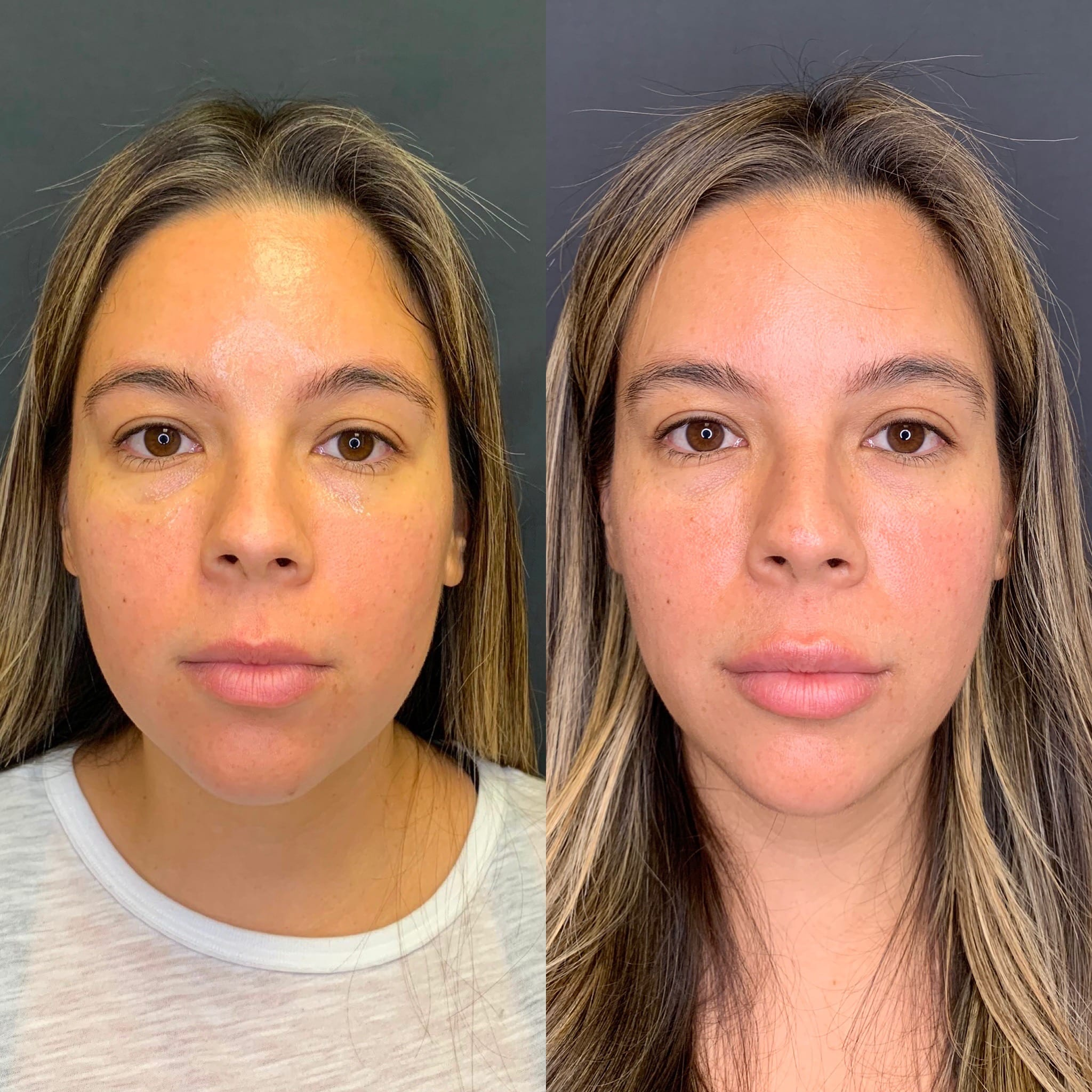 30 y/o Hispanic F 3 months after receiving 40 units of botox to her masseters for jawline slimming.