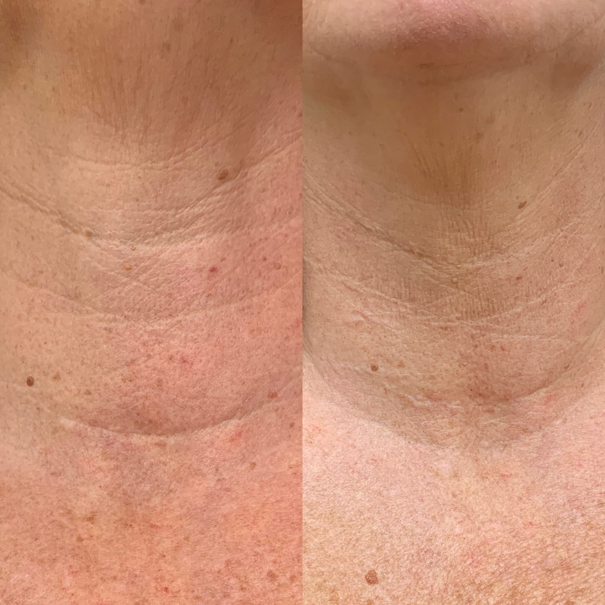 52 y/o Caucasian F 2 weeks after injecting vollure to her neck lines.