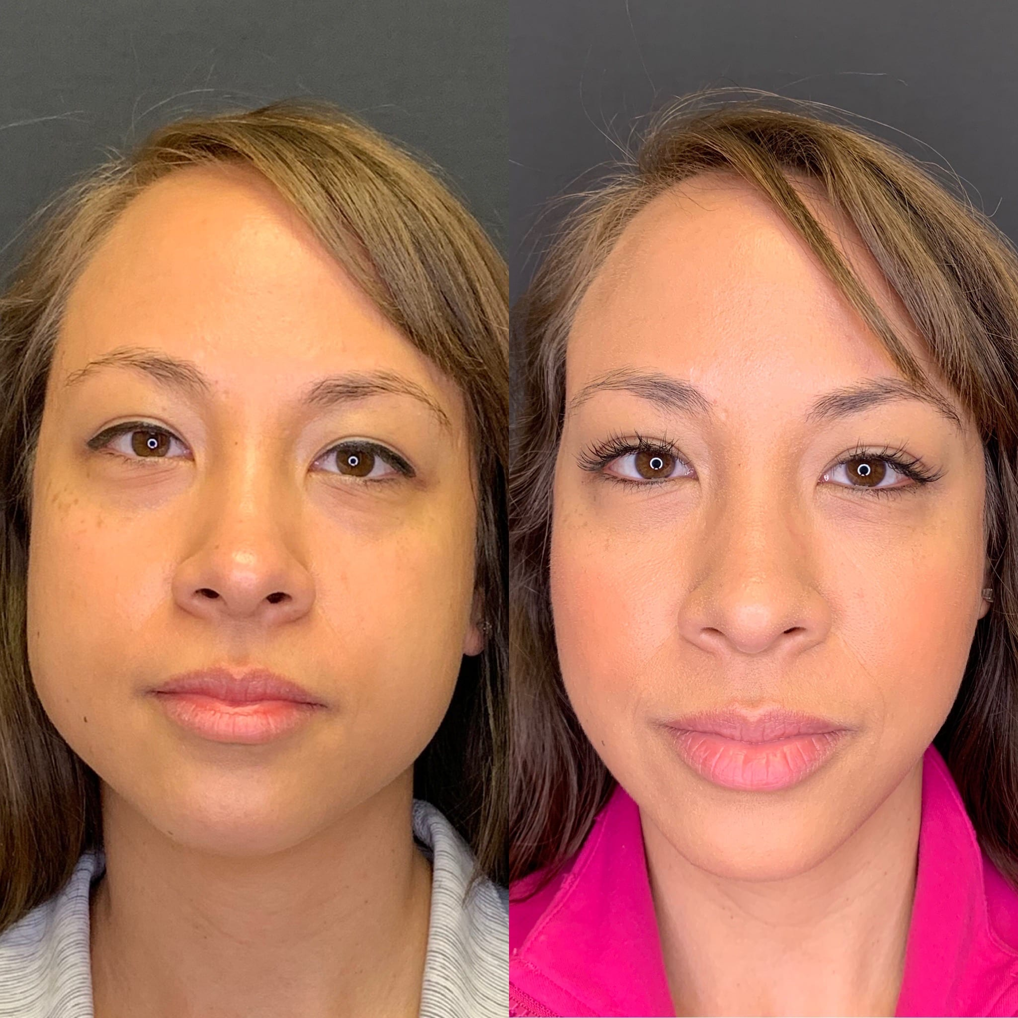 31 y/o Asian F 3 months after receiving 30 units of botox to her right masseter and 20 units to her left for jawline slimming.
