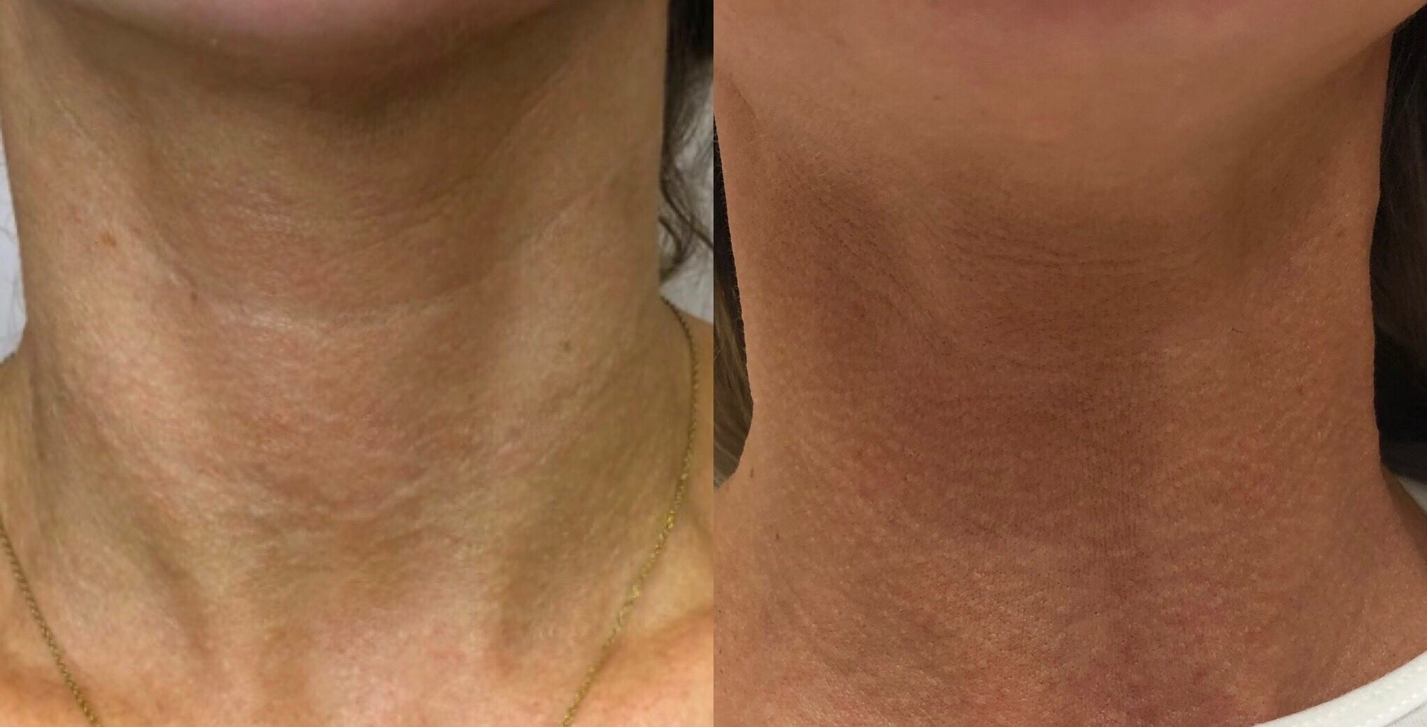 32 y/o Caucasian F 2 weeks after injecting vollure to her neck lines.