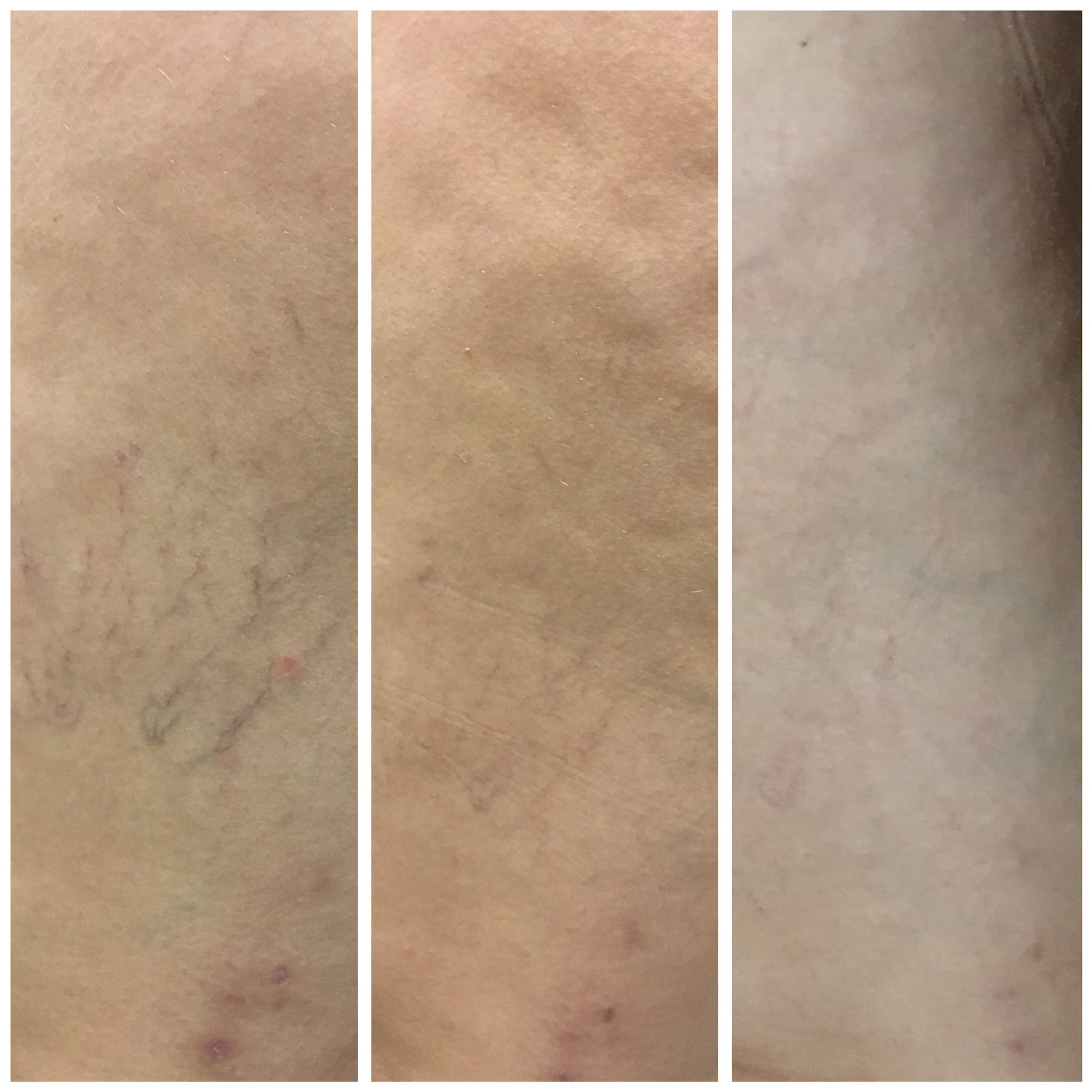 32 y/o Hispanic F after 3 treatments of sclerotherapy to the lateral thigh.
