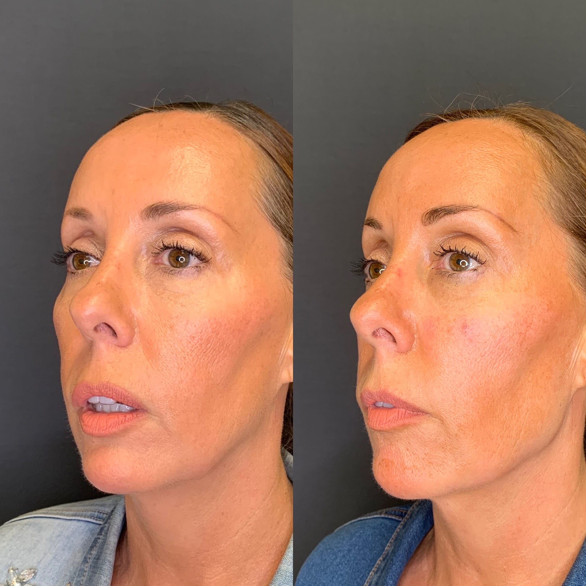 55 y/o Caucasian F 2 weeks after injecting 4 syringes of voluma along her jawline for better contour & definition.