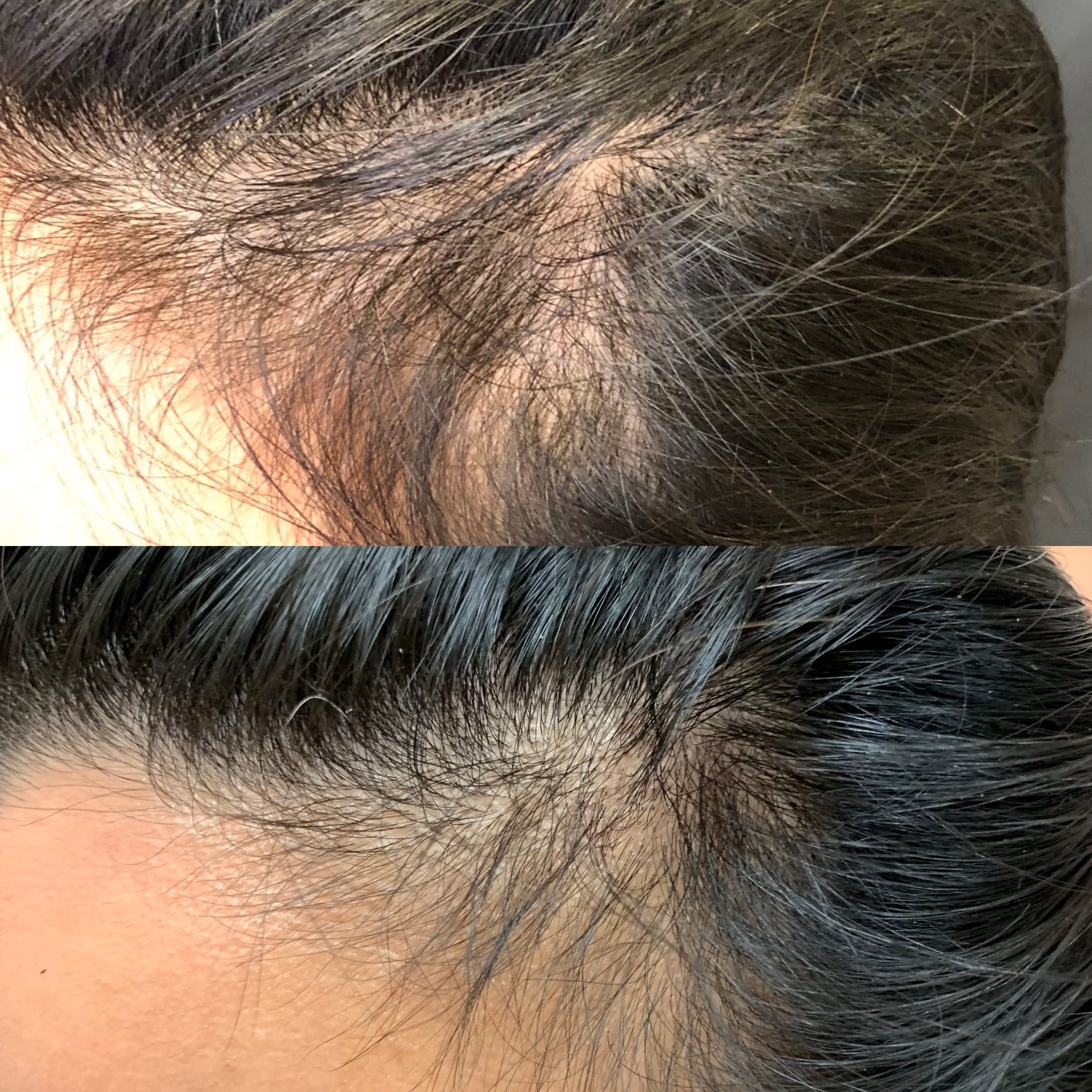 37 y/o Hispanic F 8 weeks after her first PRP hairline injections.