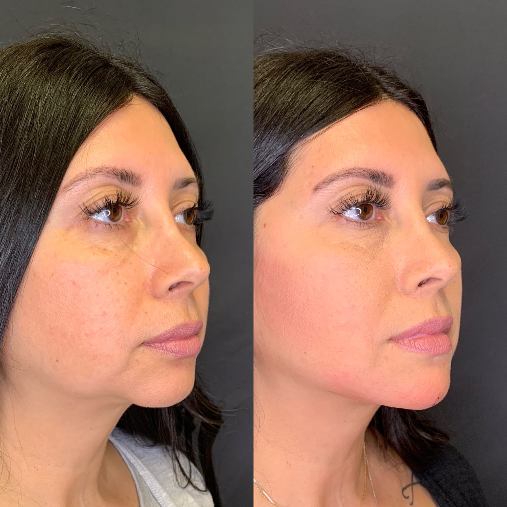 43 y/o Hispanic F immediately after injecting 3 syringes of voluma to her chin and jawline for better contour & definition.