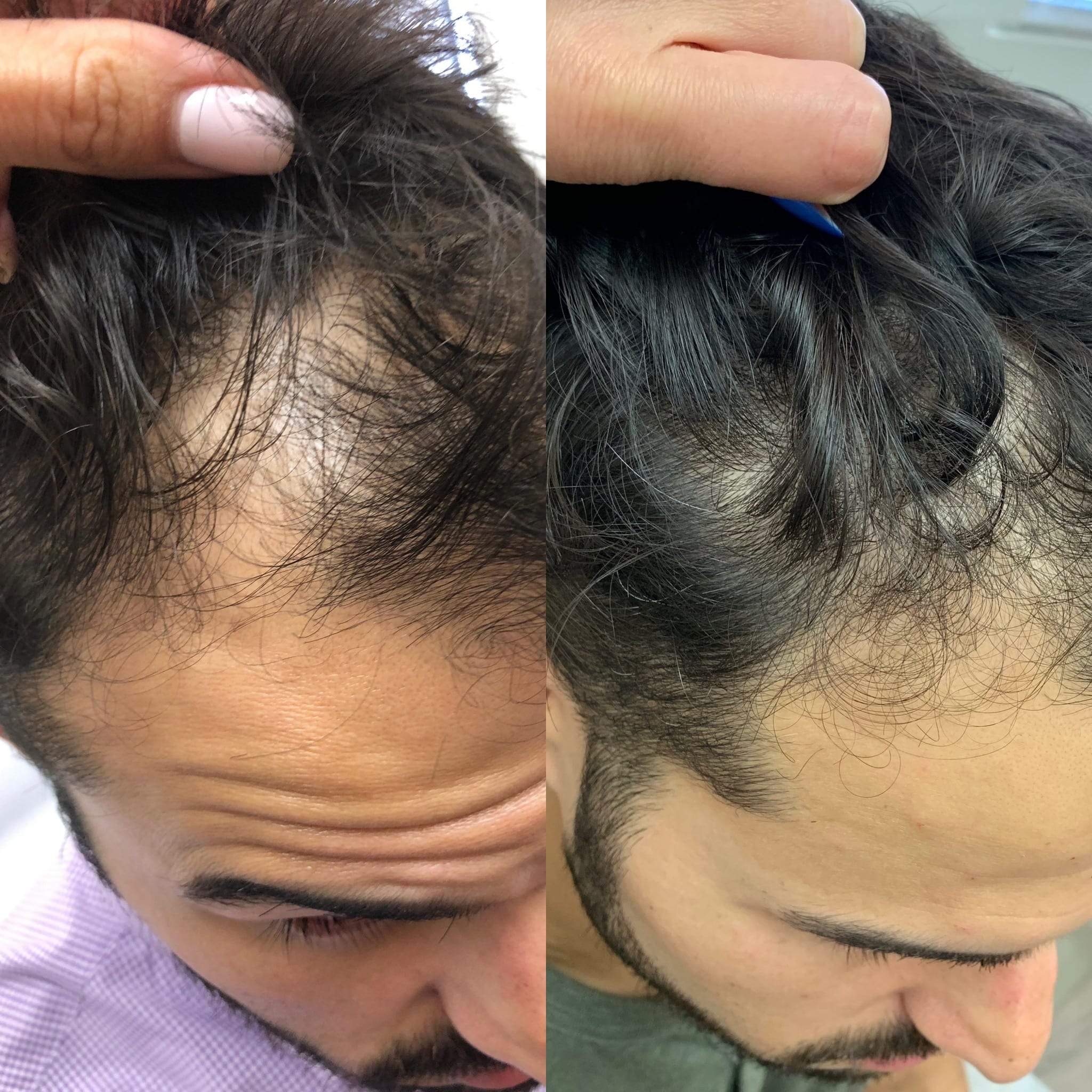32 y/o East Indian M after 3 treatments of PRP hair injections.