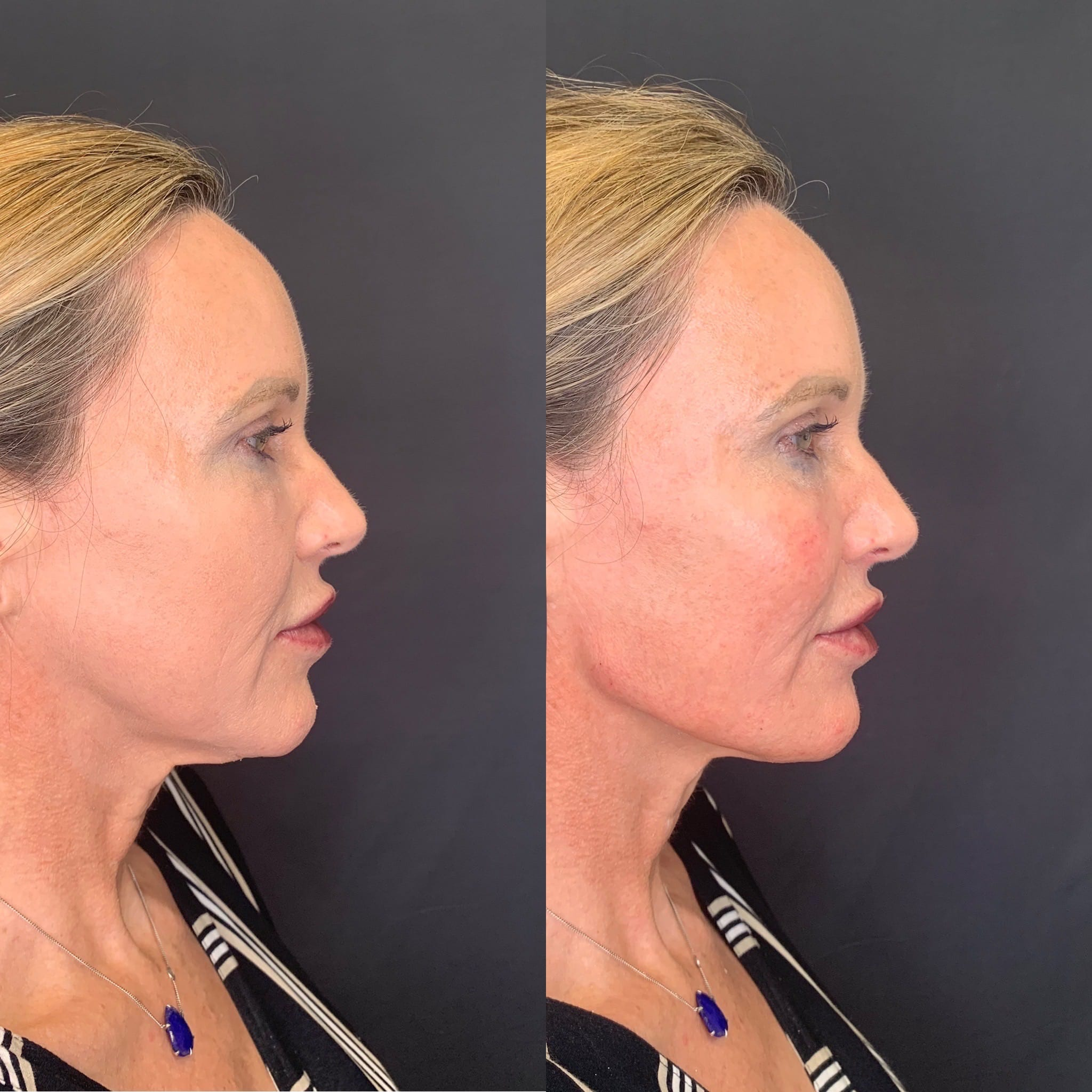 56 y/o Caucasian F immediately after injecting 3 syringes of voluma along her jawline for better contour & definition.