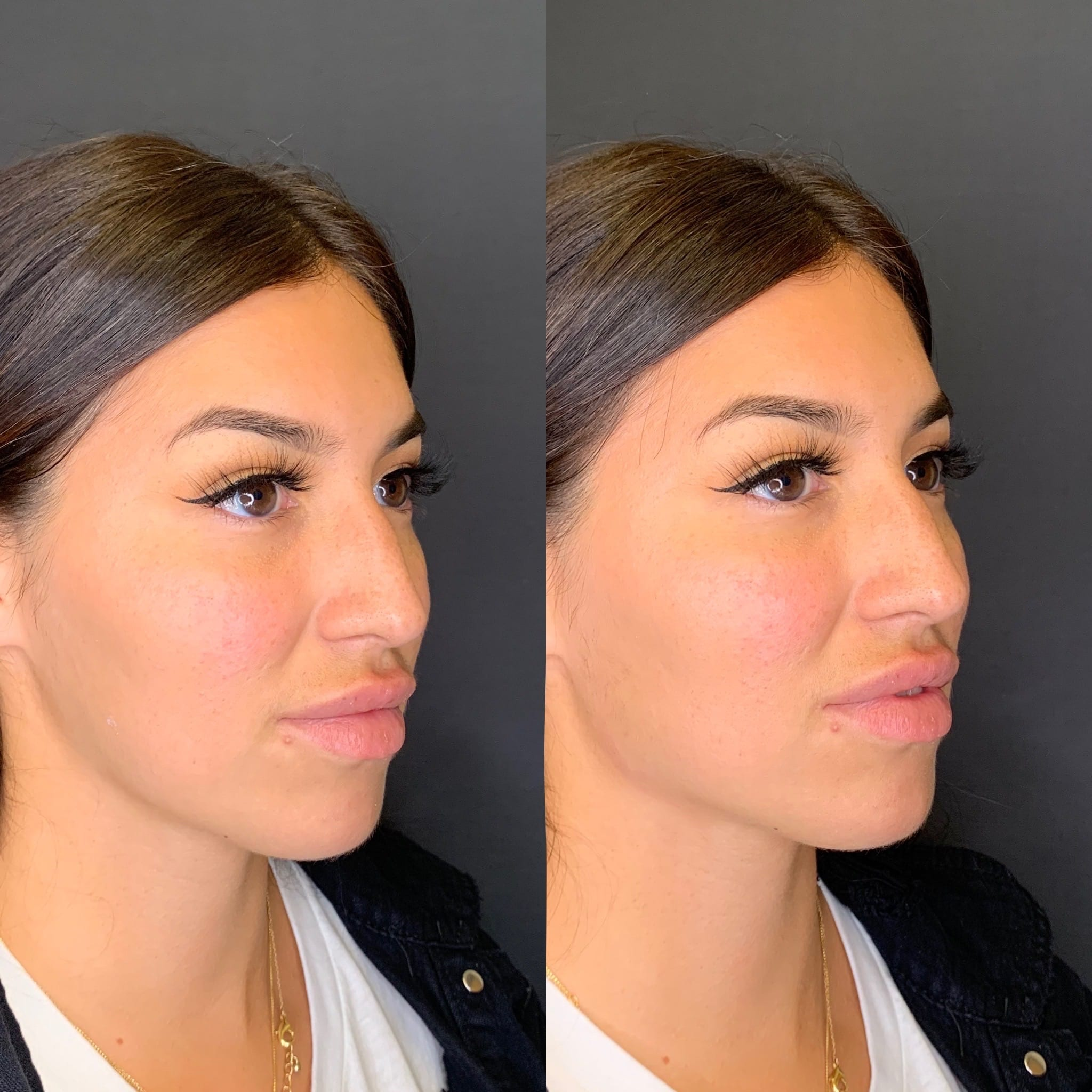 28 Hispanic F immediately after injecting 2 syringes of voluma to her posterior jawline for better contour & definition.