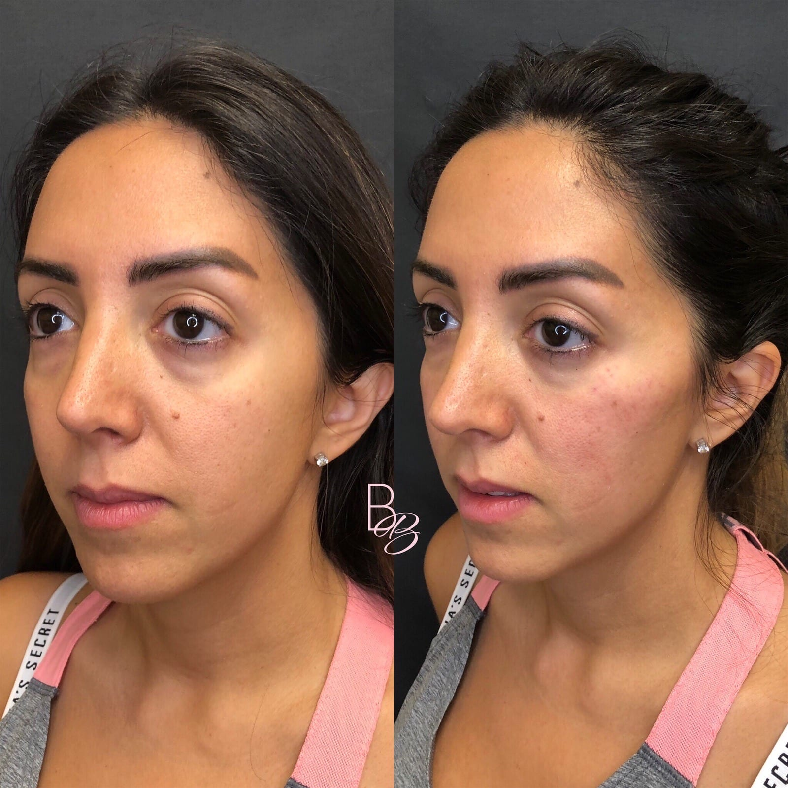38 y/o Middle Eastern F immediately after injecting 2 syringes of voluma to her cheek bones for mid-face lift, contour and definition.