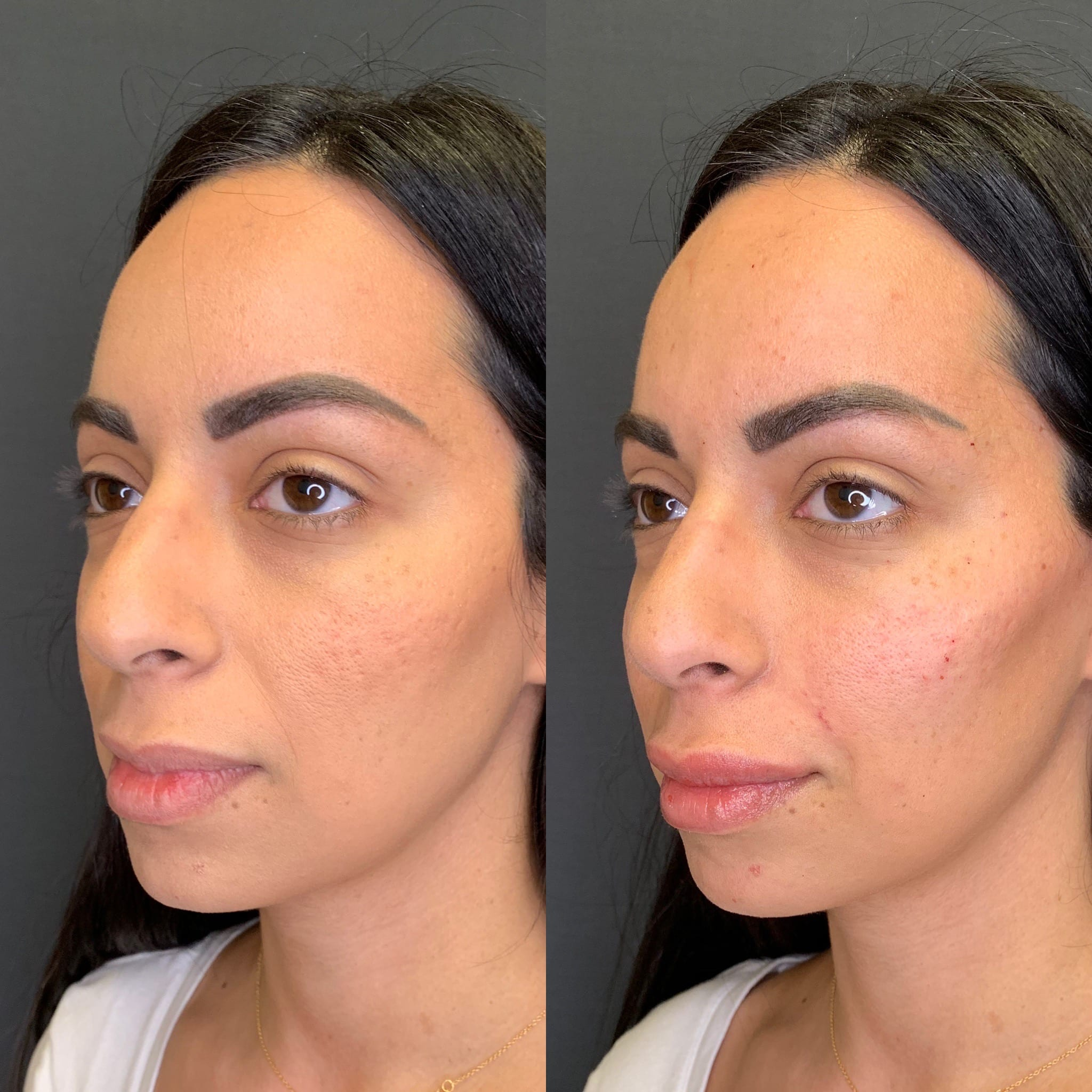 32 y/o Middle Eastern F immediately after injecting 2 syringes of voluma to her cheek bones for mid-face lift, contour and definition.