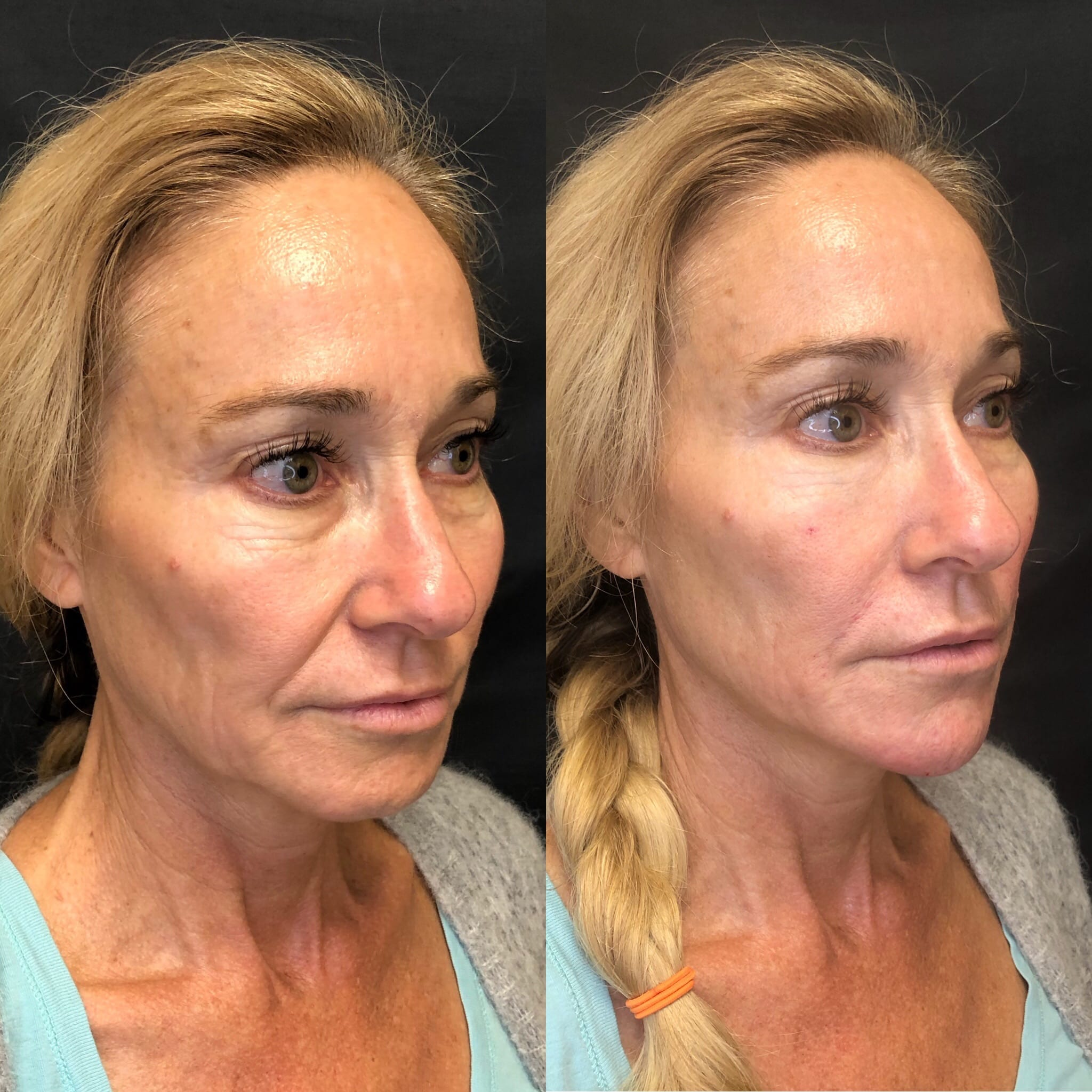 58 y/o Caucasian F immediately after injecting 2 syringes of voluma to her chin and jawline for chin reshaping and definition.