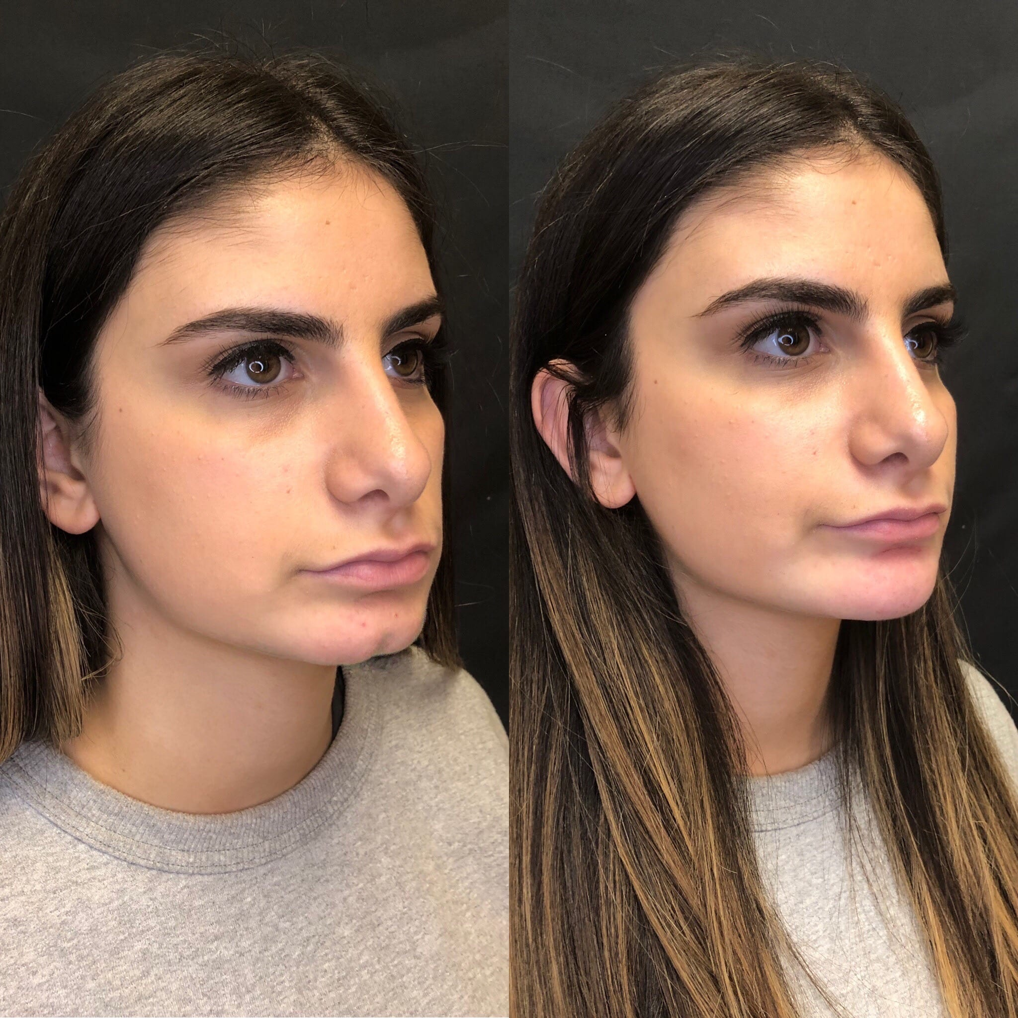 20 y/o Middle Eastern F immediately after injecting 1 full syringe of voluma to her chin cleft for reshaping.