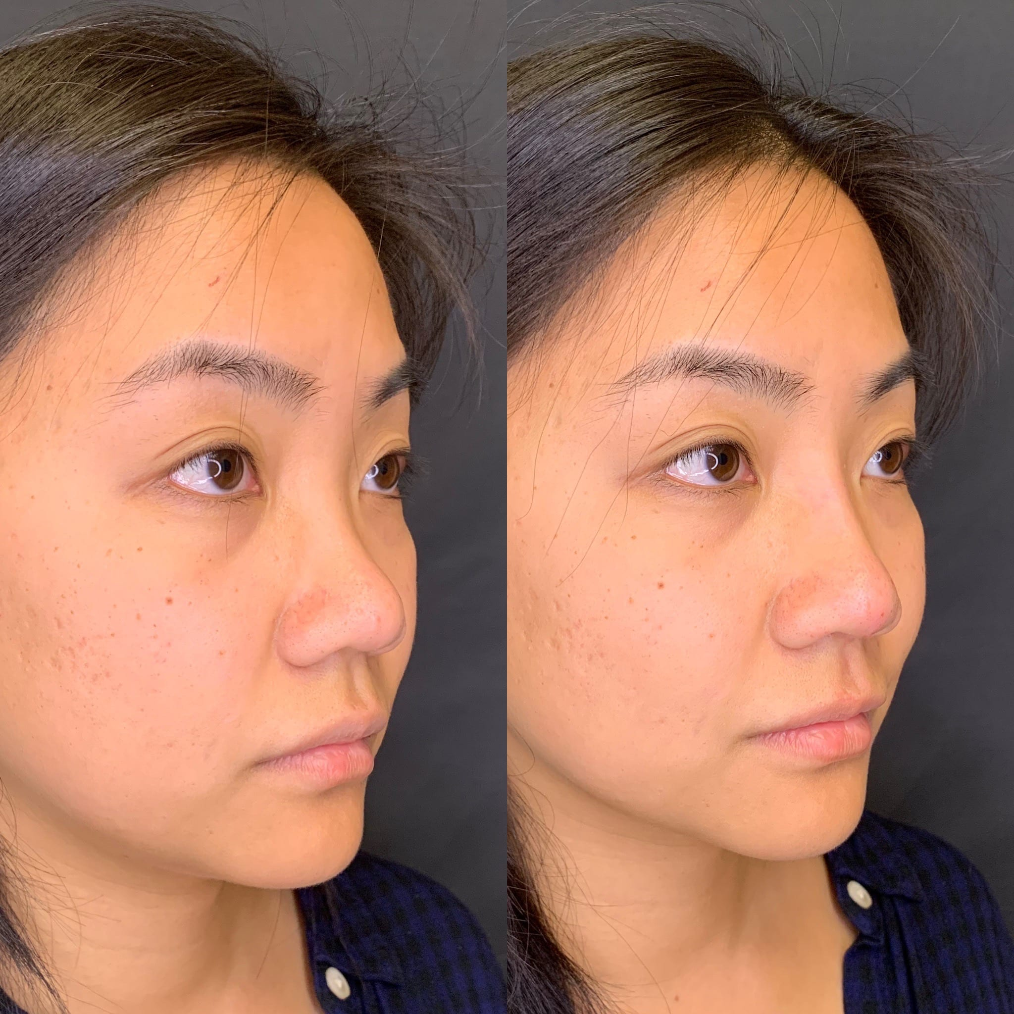 28 y/o Asian F immediately after injecting voluma along her nasal bridge to improve her projection.