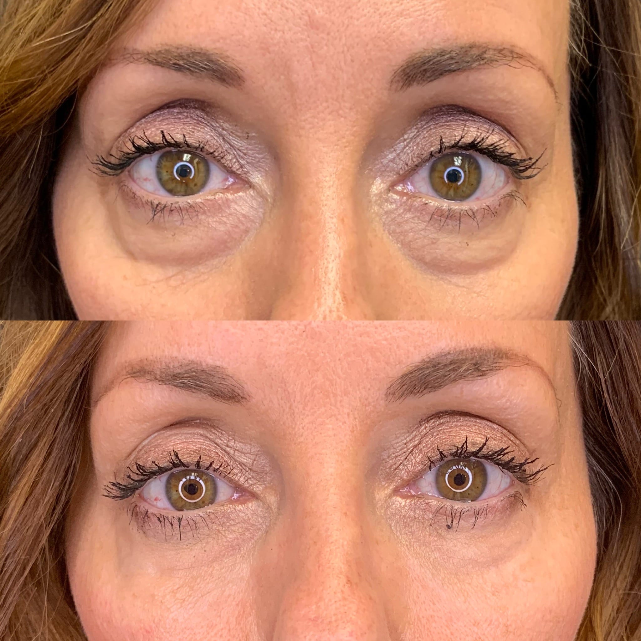 53 y/o Caucasian F 2 weeks after 1 syringe of volbella to diminish the appearance of her eye bags.