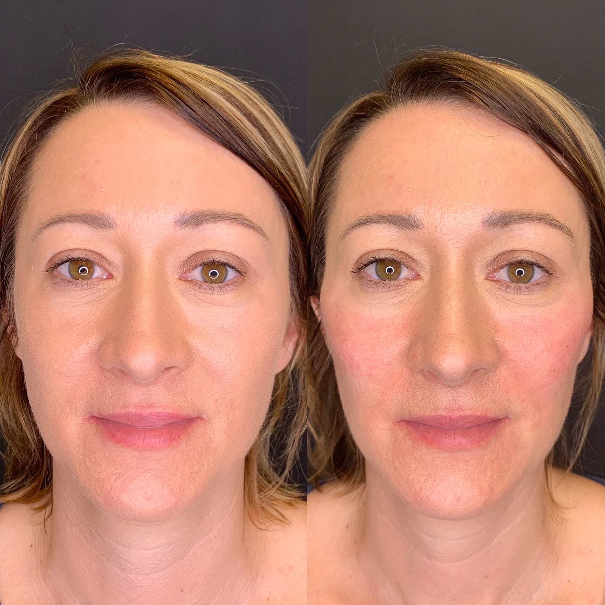 38 y/o European F immediately after injecting 2 syringes of voluma to her cheek bones for mid-face lift, contour and definition.