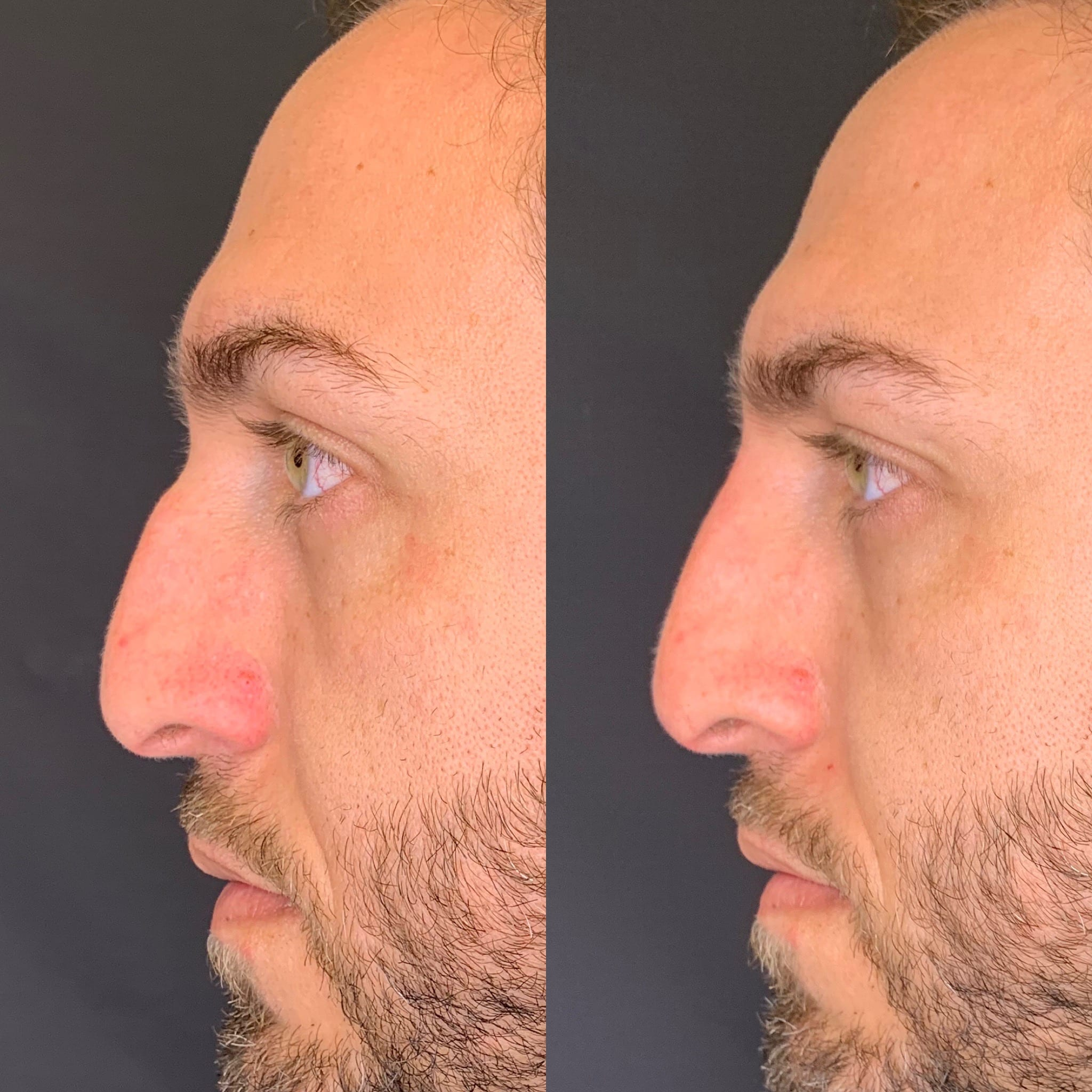 35 y/o Middle Eastern M immediately after injecting voluma above his nasal hump to improve his side profile.