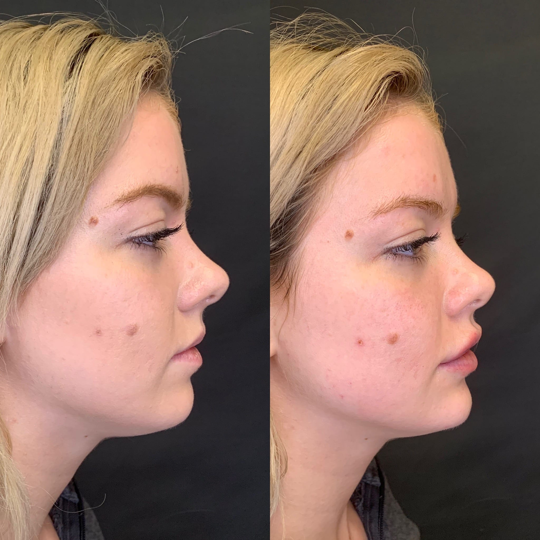 24 y/o Caucasian F immediately after injecting 1 full syringe of voluma to her chin for better projection and side profile balancing.