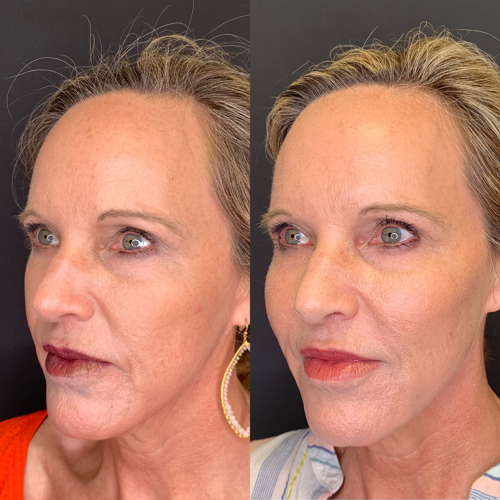 56 y/o Caucasian F 2 weeks after after injecting 3 syringes of voluma to her cheek bones for mid-face lift and facial contour.