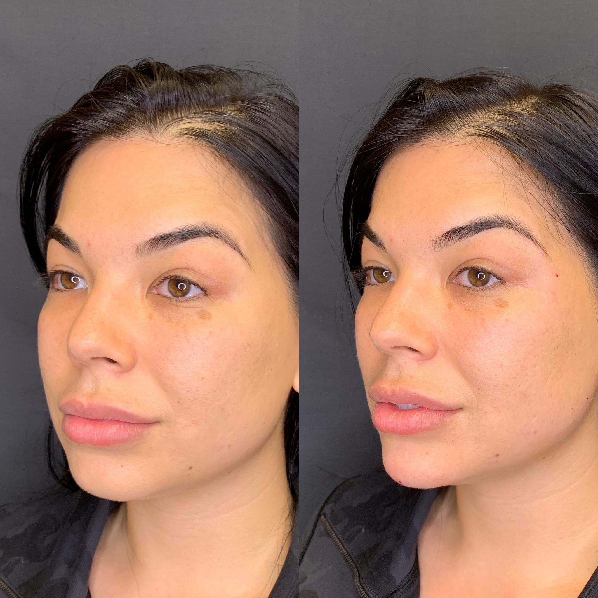 27 y/o Asian F immediately after injecting 1 full syringe of voluma to her chin for better projection, contour and definition.