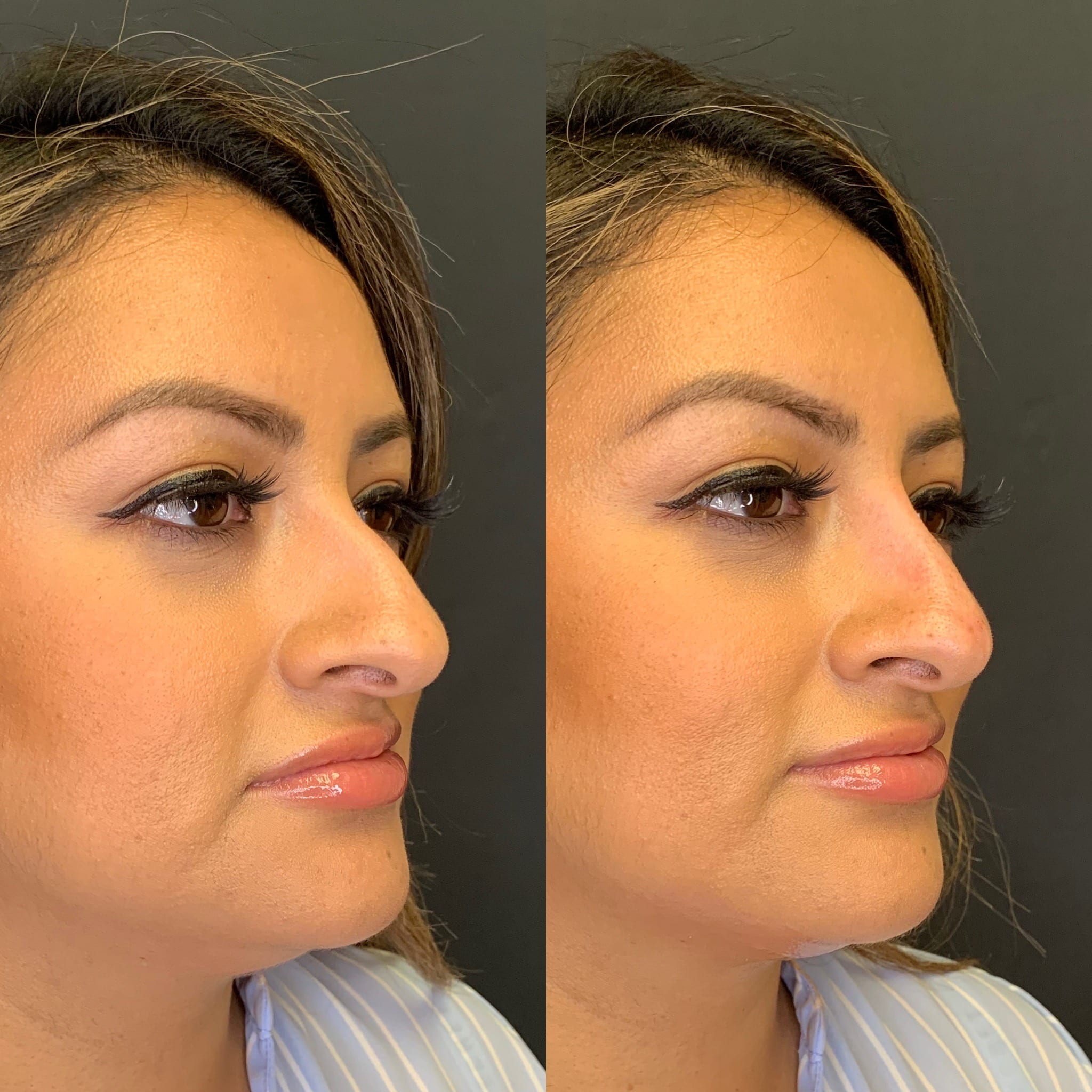 30 y/o Hispanic F immediately after injecting voluma above her nasal hump to improve her side profile.