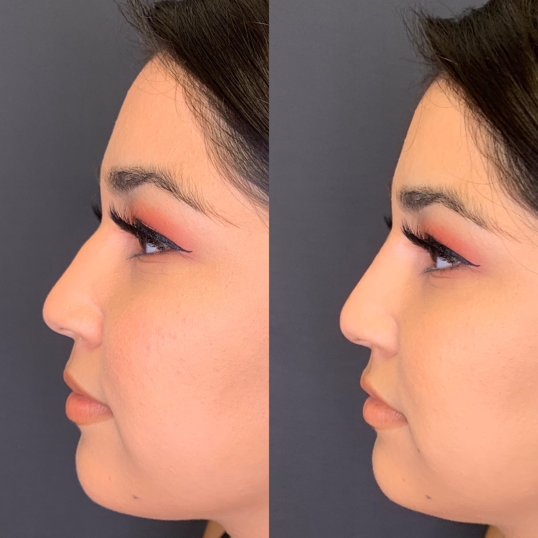 22 y/o Hispanic F immediately after injecting voluma above her nasal hump to improve her side profile.