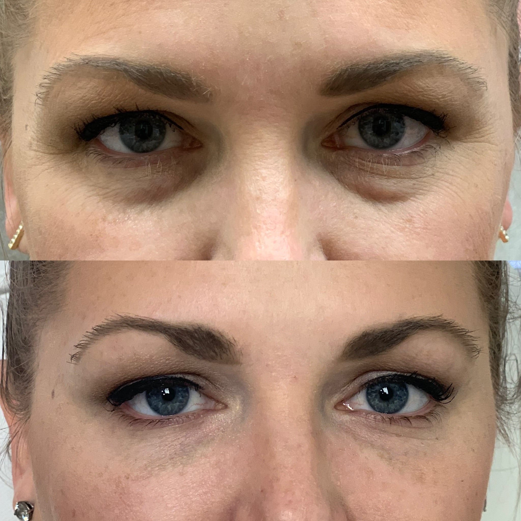 32 y/o Caucasian F 2 weeks after 1 syringe of volbella to her under eye area.