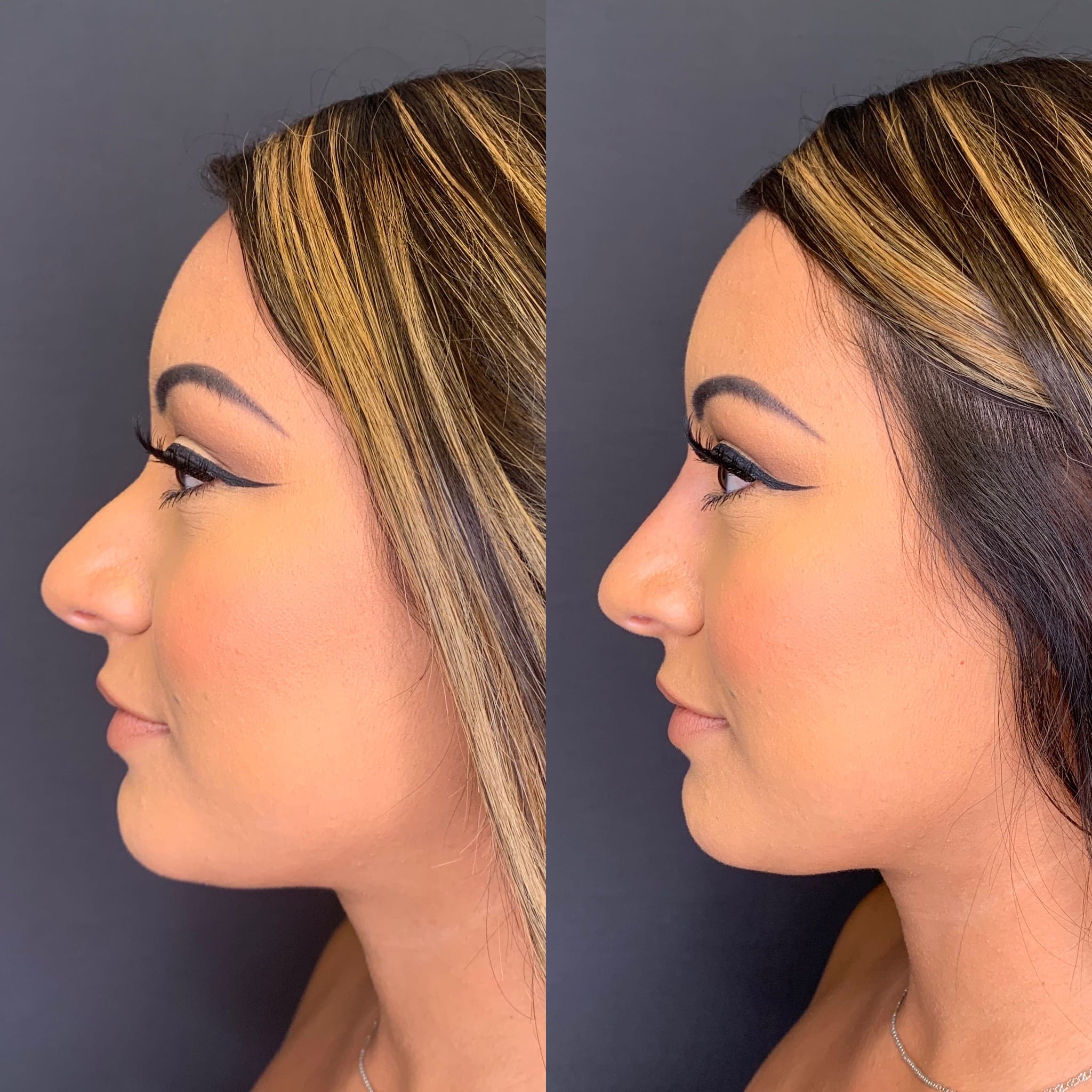 23 y/o Hispanic F immediately after injecting voluma above her nasal hump to improve her side profile.