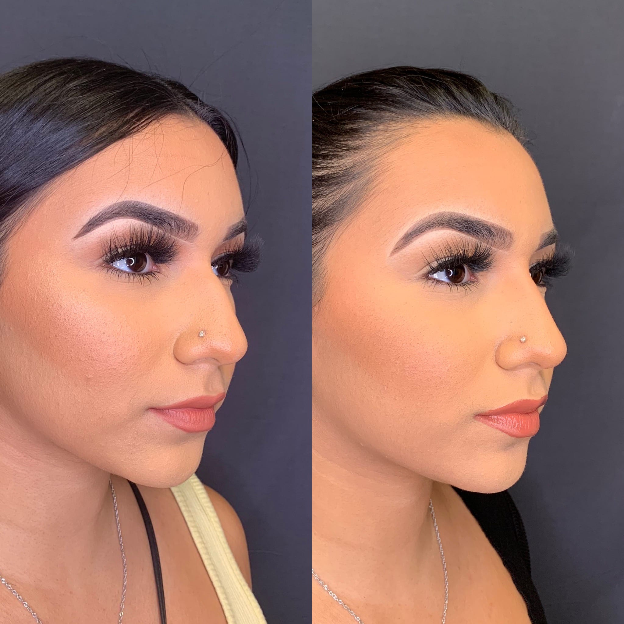 24 y/o Hispanic F 2 weeks after injecting voluma above her nasal hump to improve her side profile.