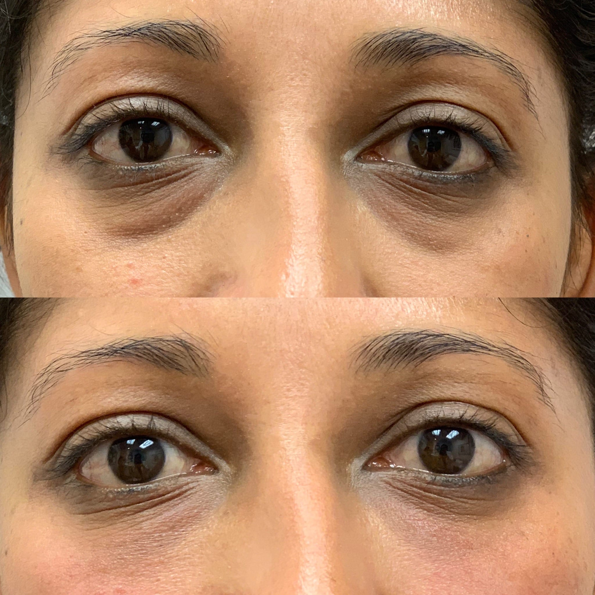 30 y/o East Indian F immediately after tear trough filler using voluma.