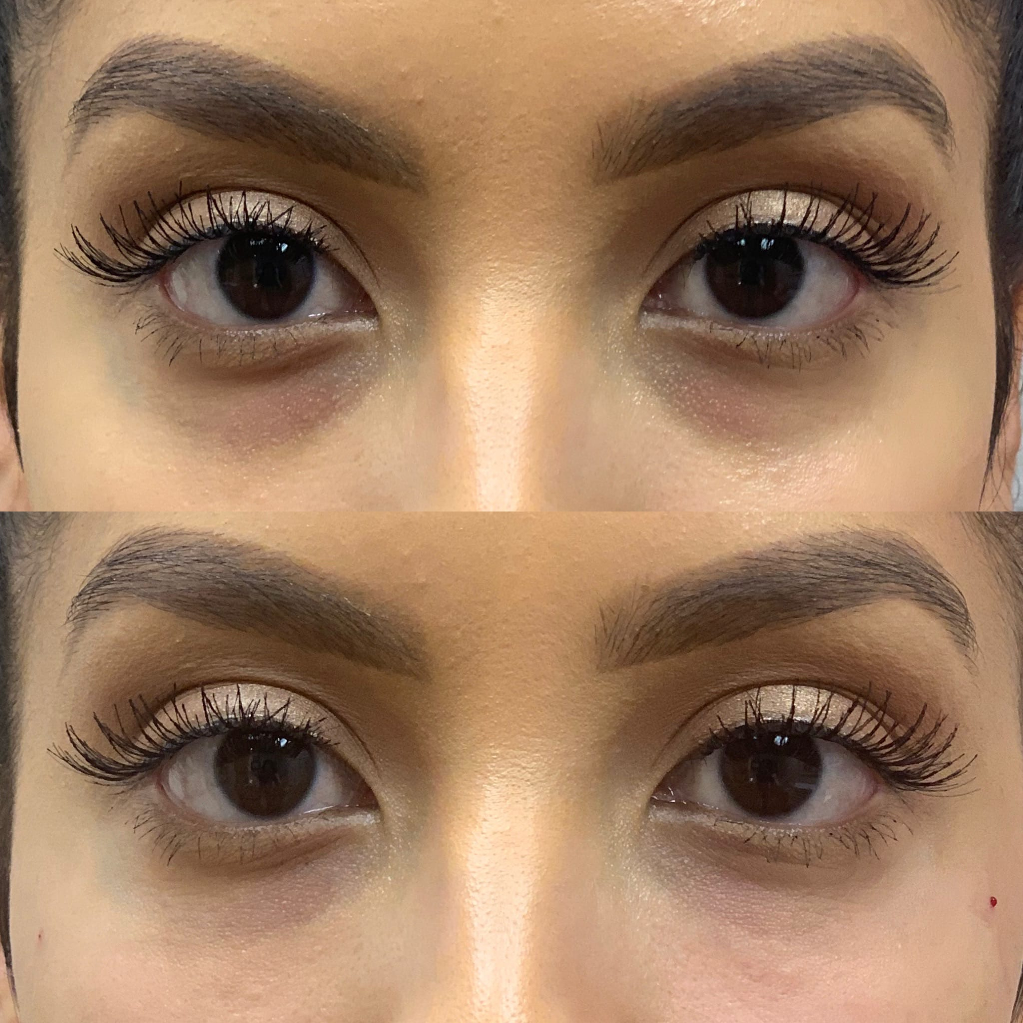 25 y/o Hispanic F immediately after injecting Restylane-L to her under eye area.