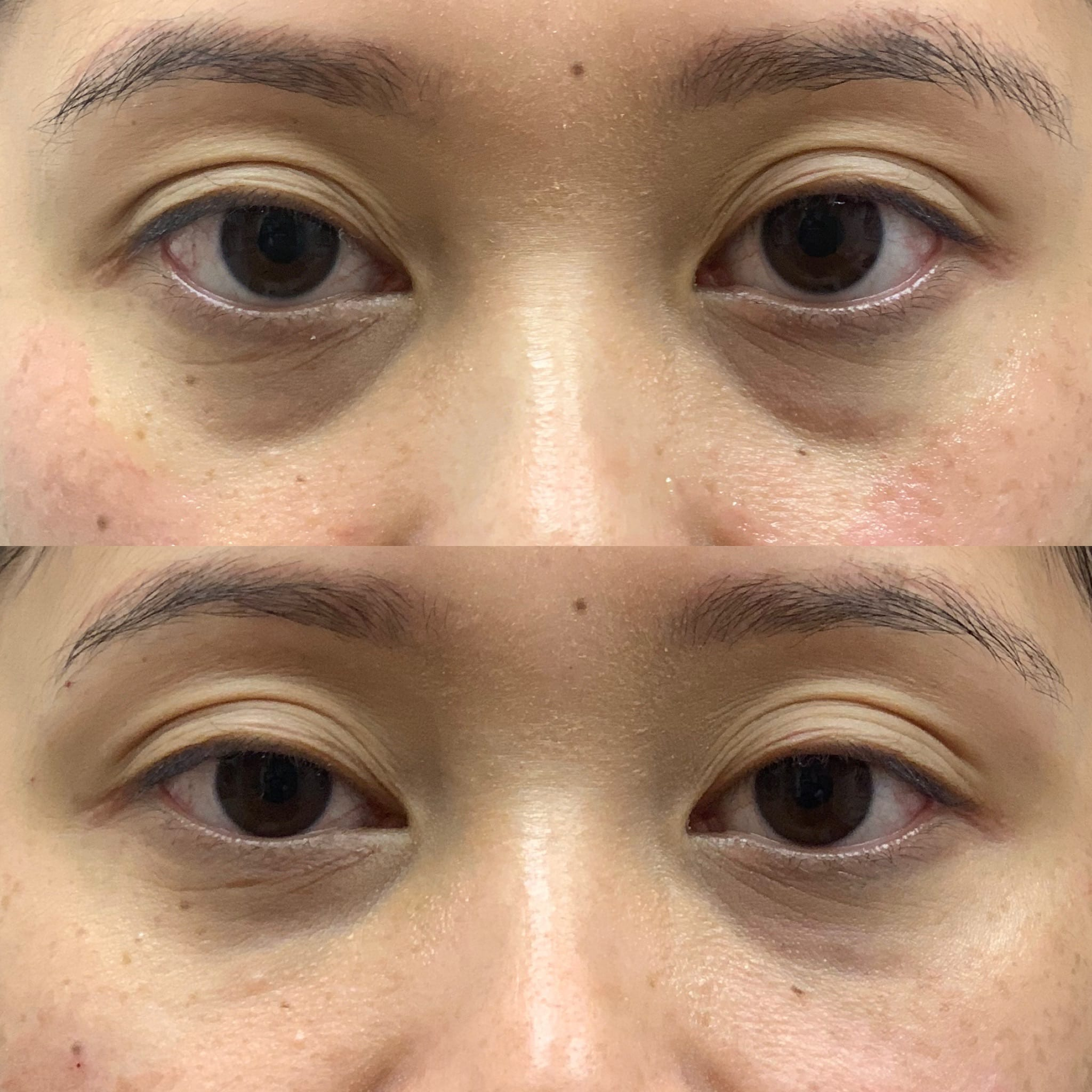 31 y/o Asian F 2 weeks after injecting vollure to her under eye area.
