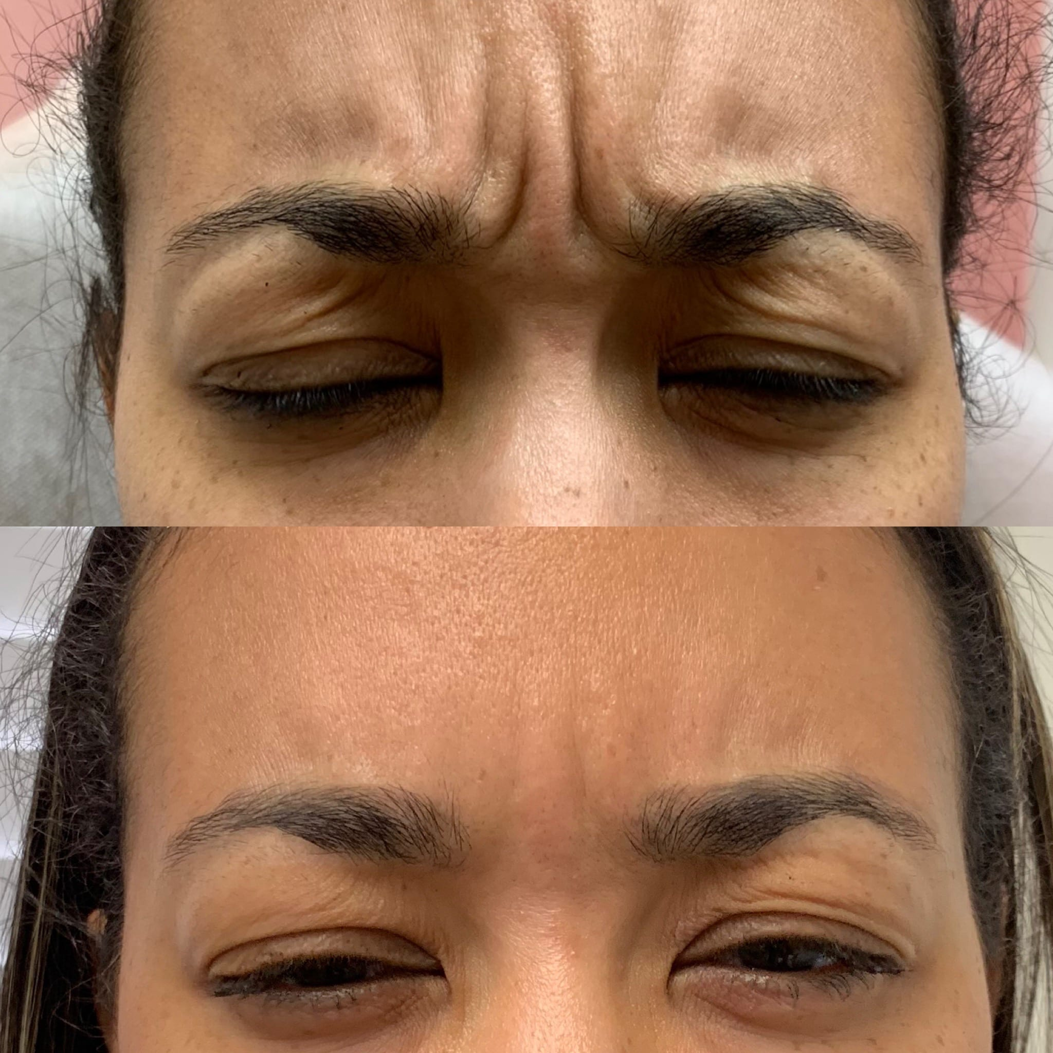 36 y/o African American F 2 weeks after 30 units of botox to her frown lines.
