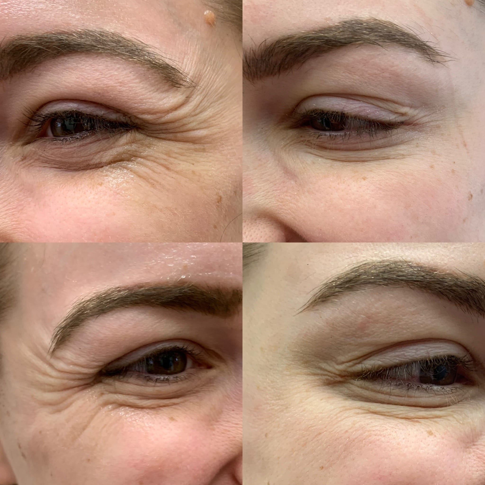 29 y/o Caucasian F 1 week after receiving 24 units of botox to her crow's feet and brow lift.