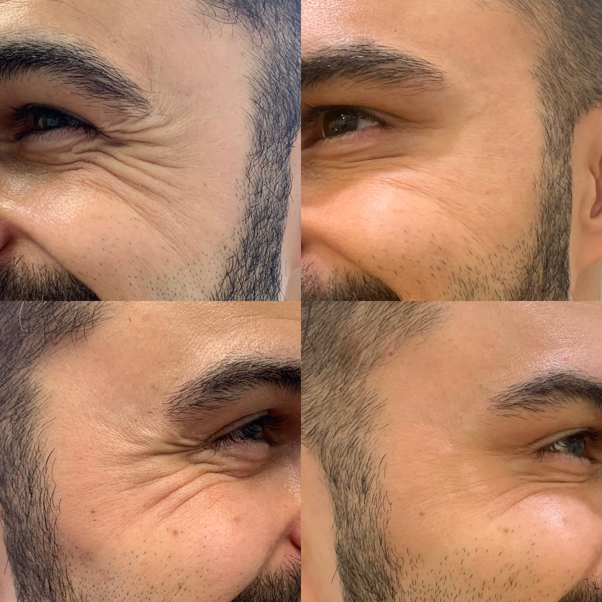 32 y/o East Indian M 1 week after receiving 24 units of botox to crow's feet and brow lift.