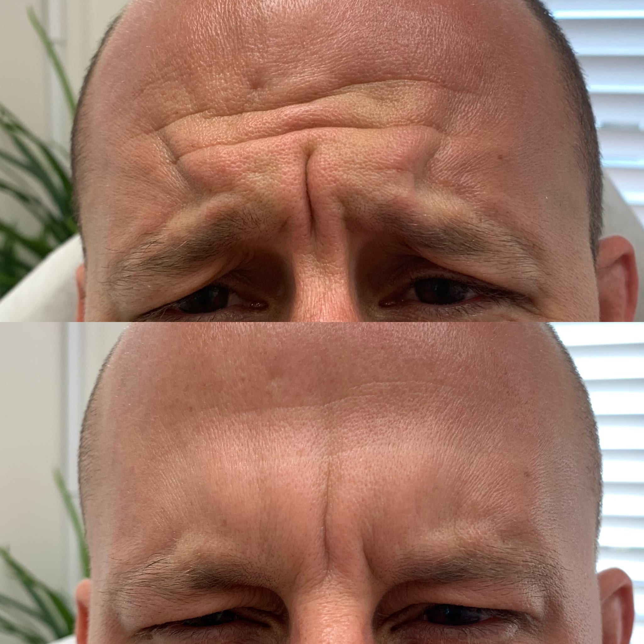 36 y/o Caucasian F 2 weeks after receiving 30 units of botox to soften his frown lines.