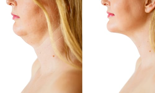 before and after Beauty Boost Med Spa chin fat correction procedure