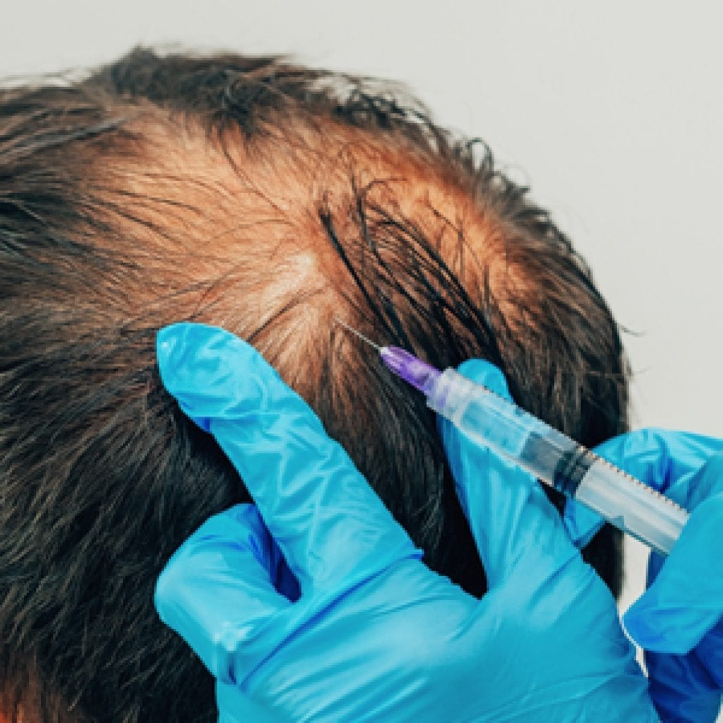 Hair Restoration at Beauty Boost Med Spa with PRP Treatments