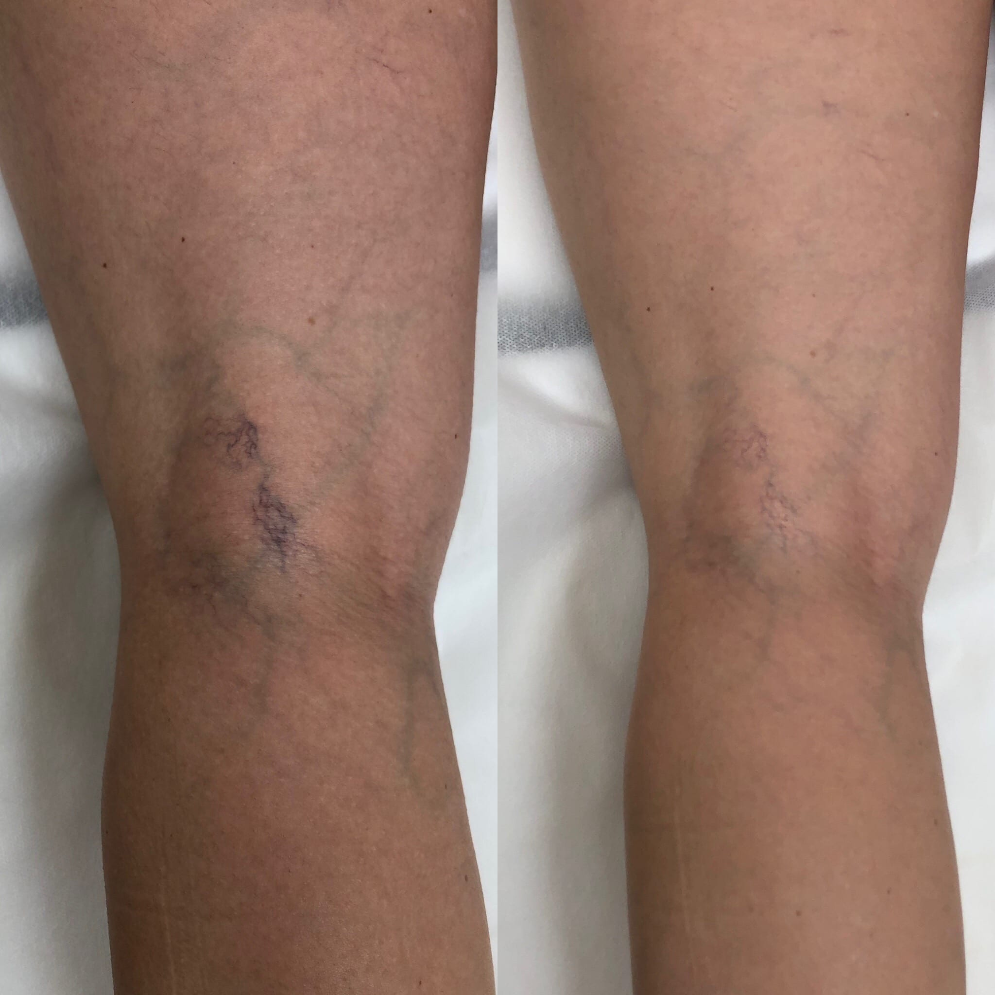 38 y/o Caucasian F after 3 treatments of sclerotherapy to the posterior knee.
