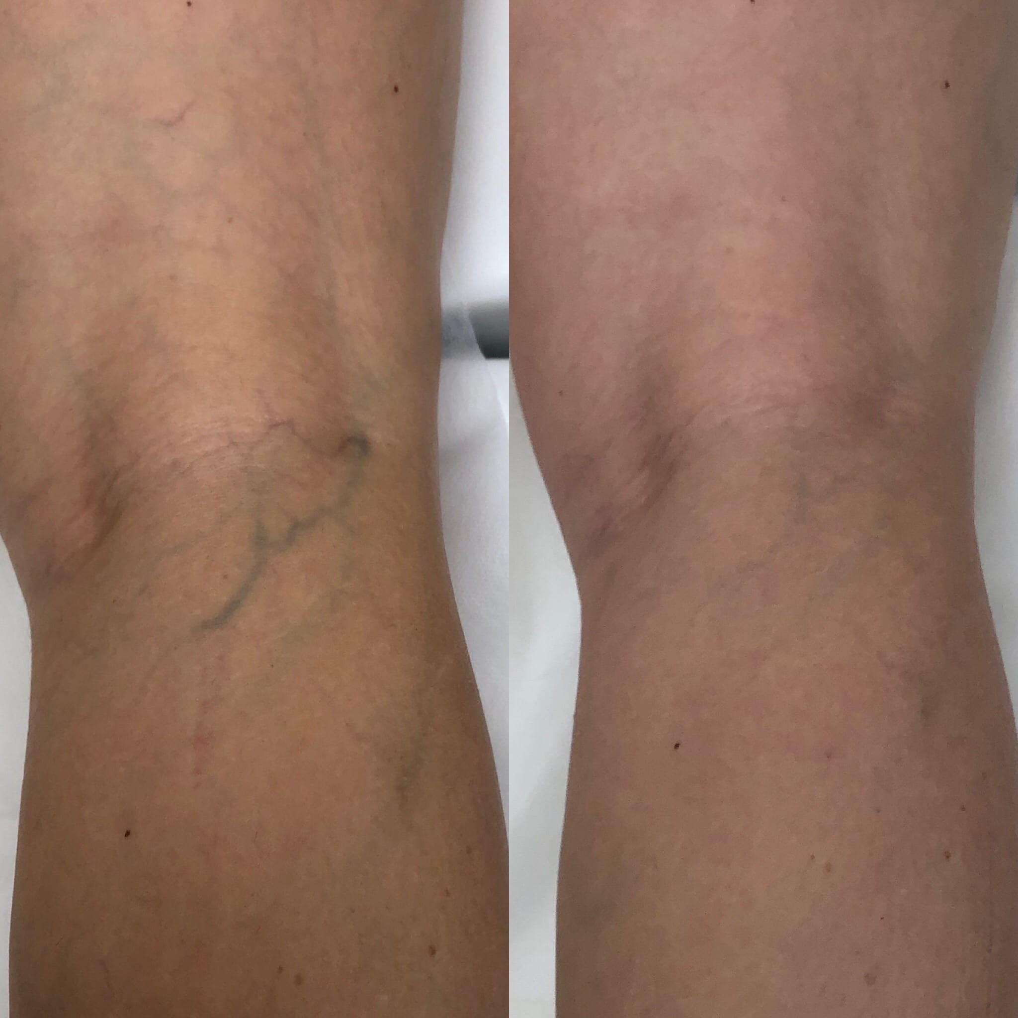 42 y/o Caucasian F after 2 treatments of sclerotherapy to the posterior knee.