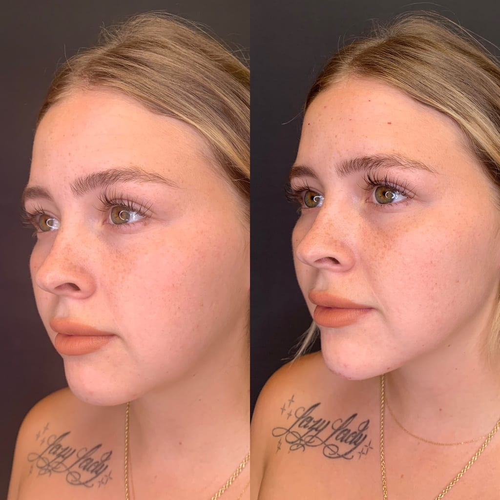 23 y/o Caucasian F 2 weeks after injecting 2 syringes of voluma to her posterior jawline for better contour & definition.