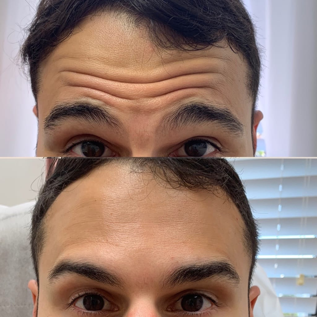 32 y/o East Indian M 1 week after receiving 14 units of botox to his forehead lines.