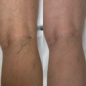 sclerotherapy treatment at Beauty Boost Med Spa